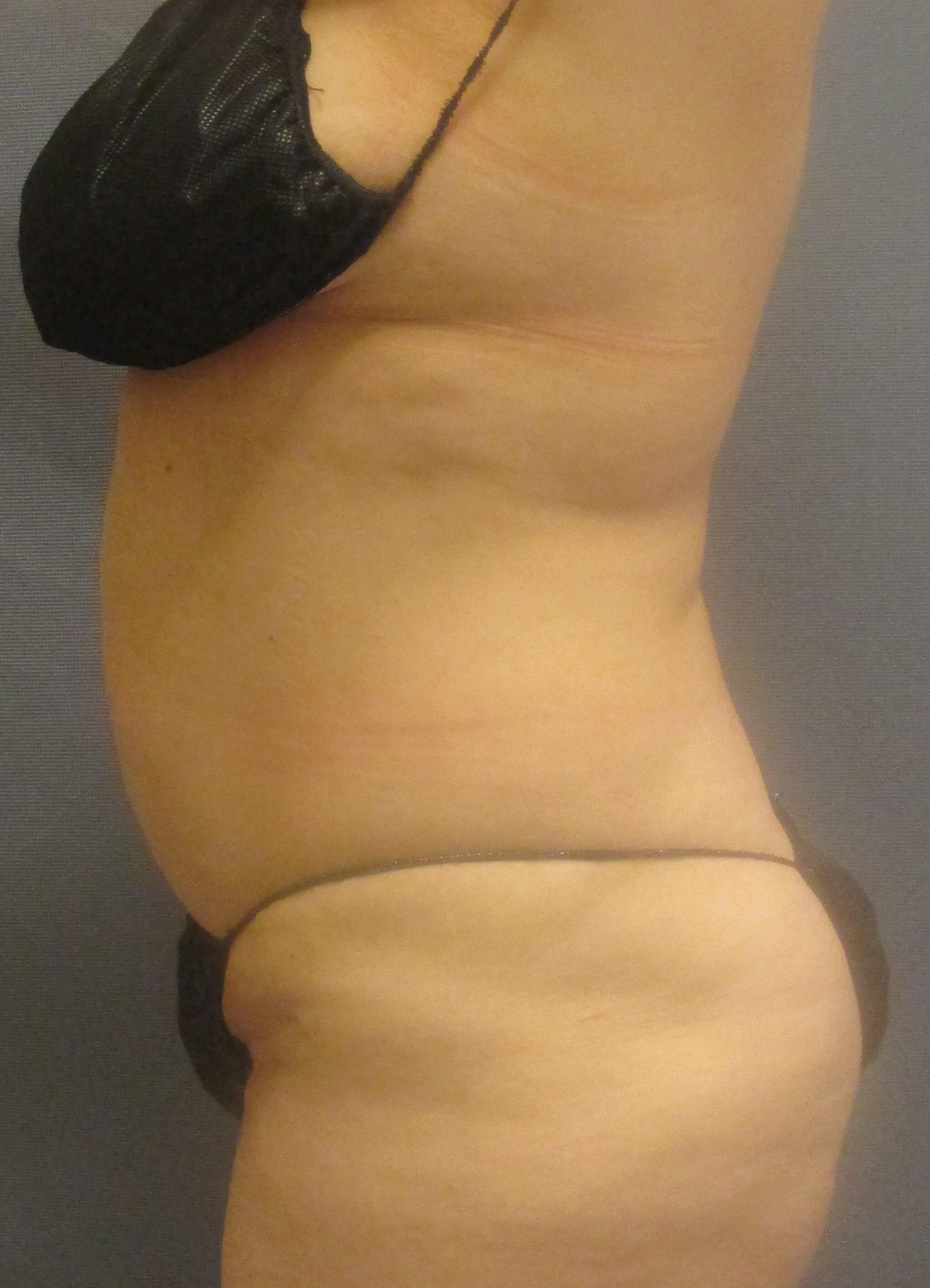 Laser Liposuction InsideLookMD 3 months after