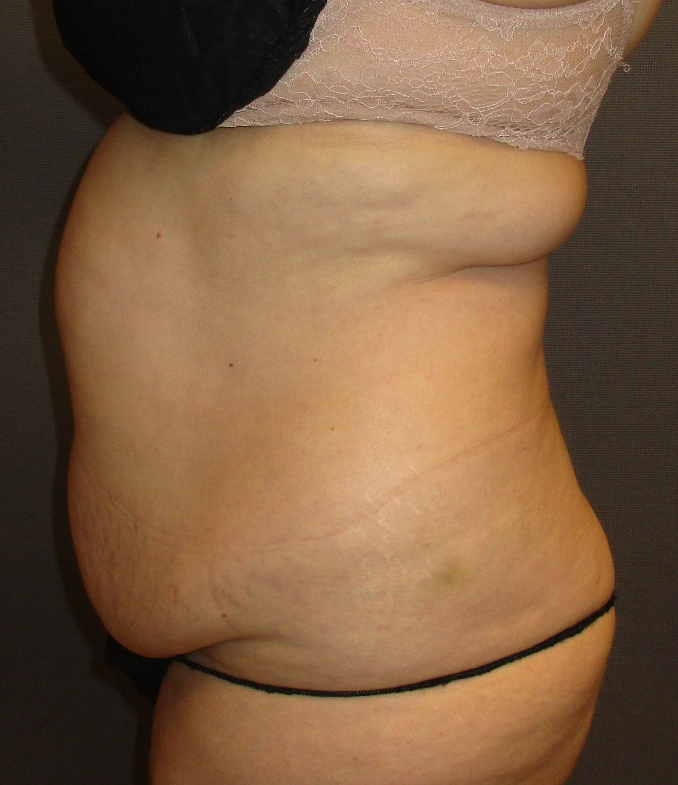 Laser Liposuction InsideLookMD Before