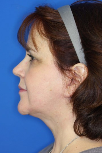 Facelift in Downers Grove, IL After