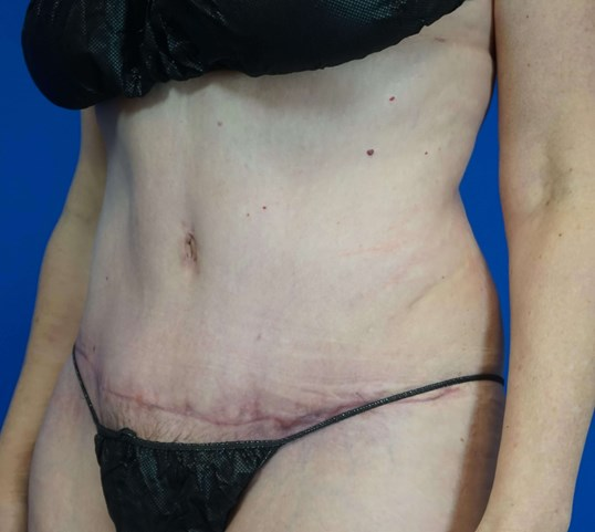 Tummy Tuck in Downers Grove,IL 2 months postop