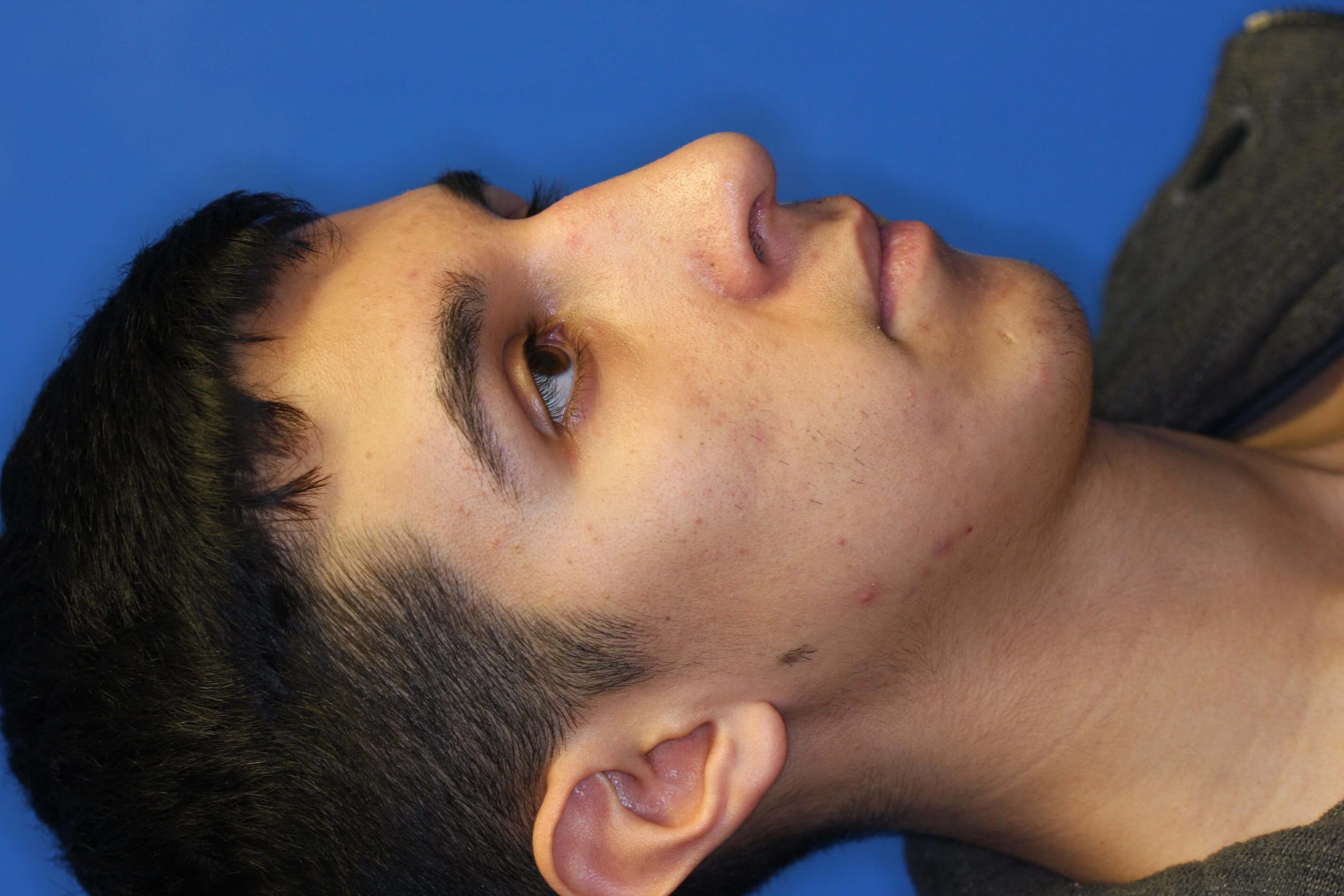 Rhinoplasty, Downers Grove, IL 1 month postop