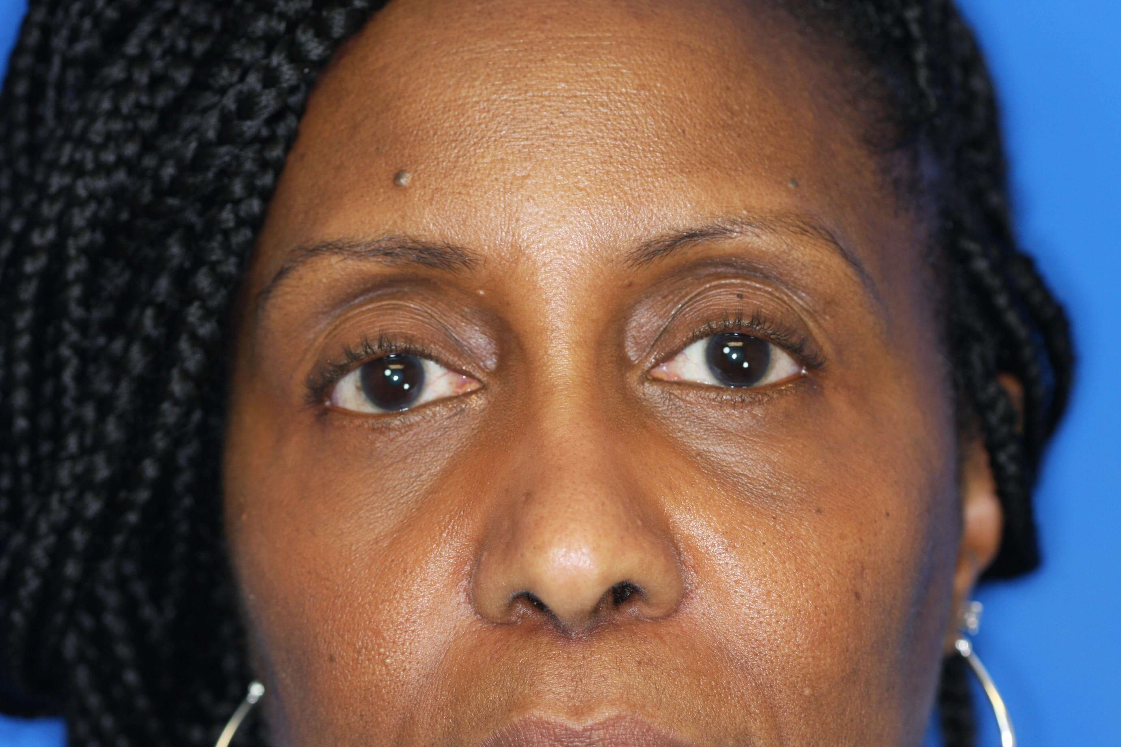 Blepharoplasty, Downers Grove 6 months post