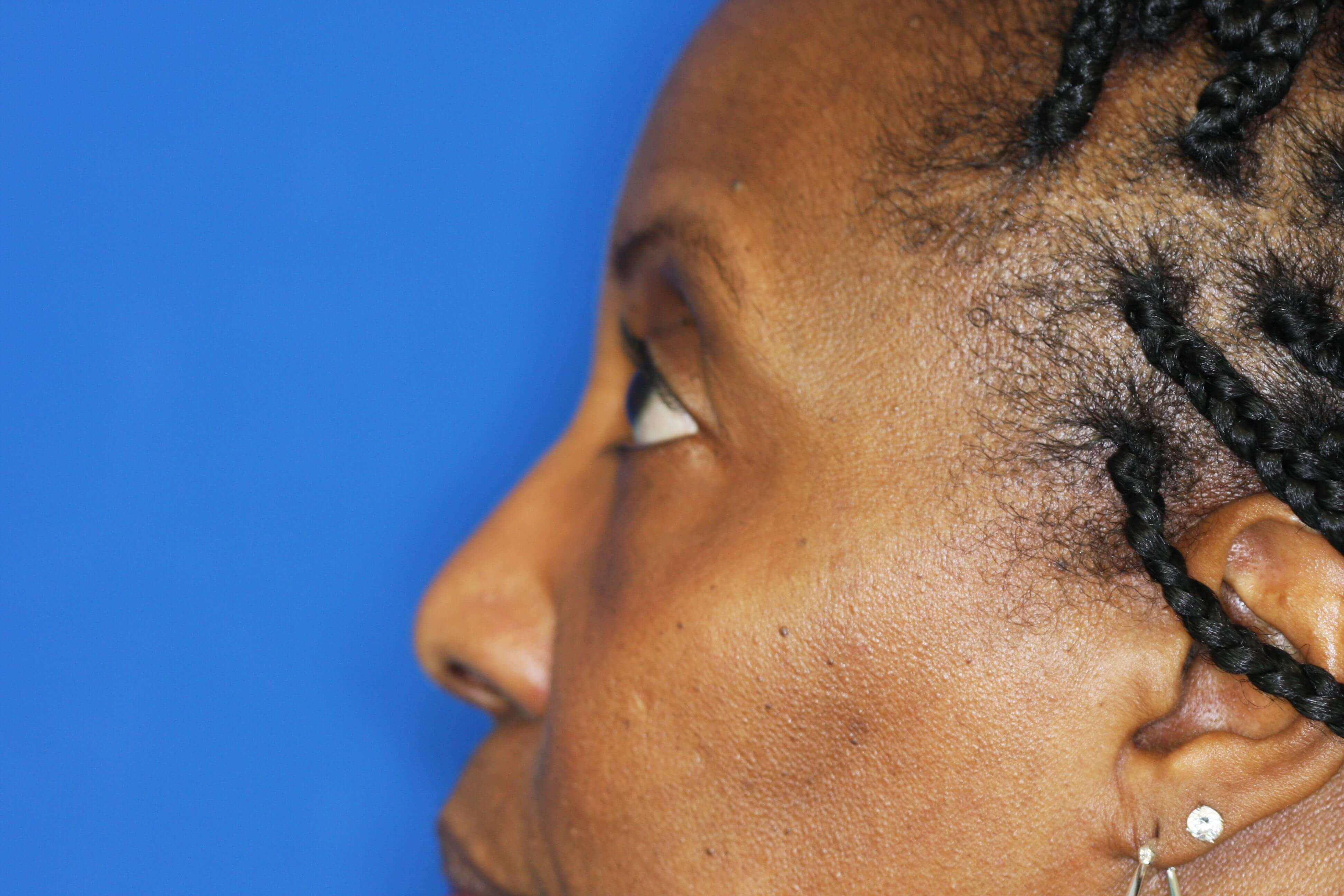 Blepharoplasty, Downers Grove 6 months after