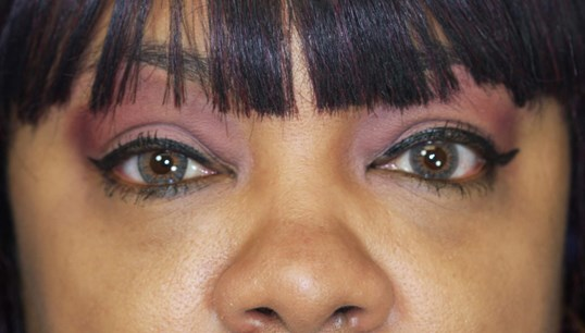 Blepharoplasty, Downers Grove 3 months after