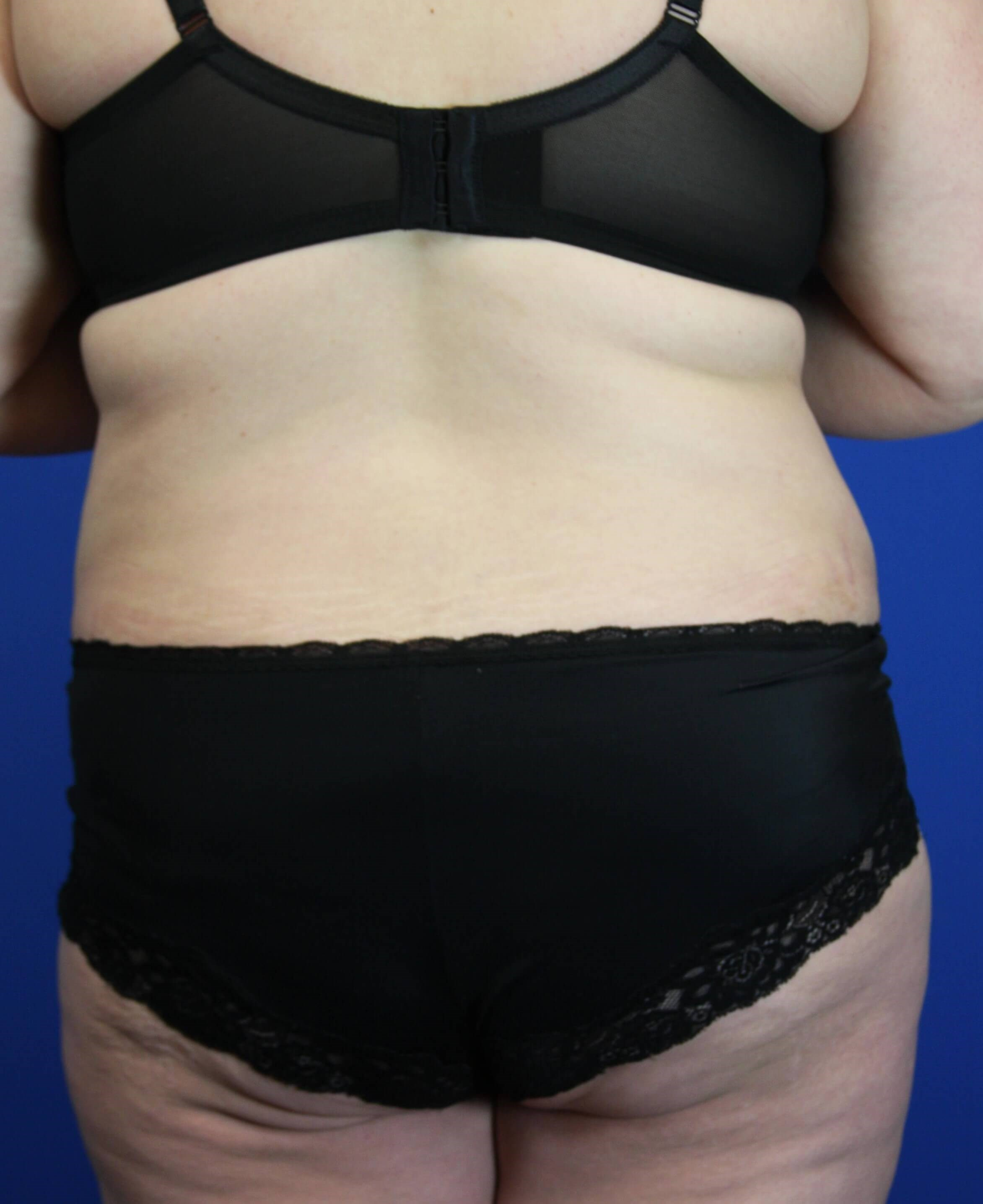 Tummy Tuck, Downers Grove, IL 3 months after