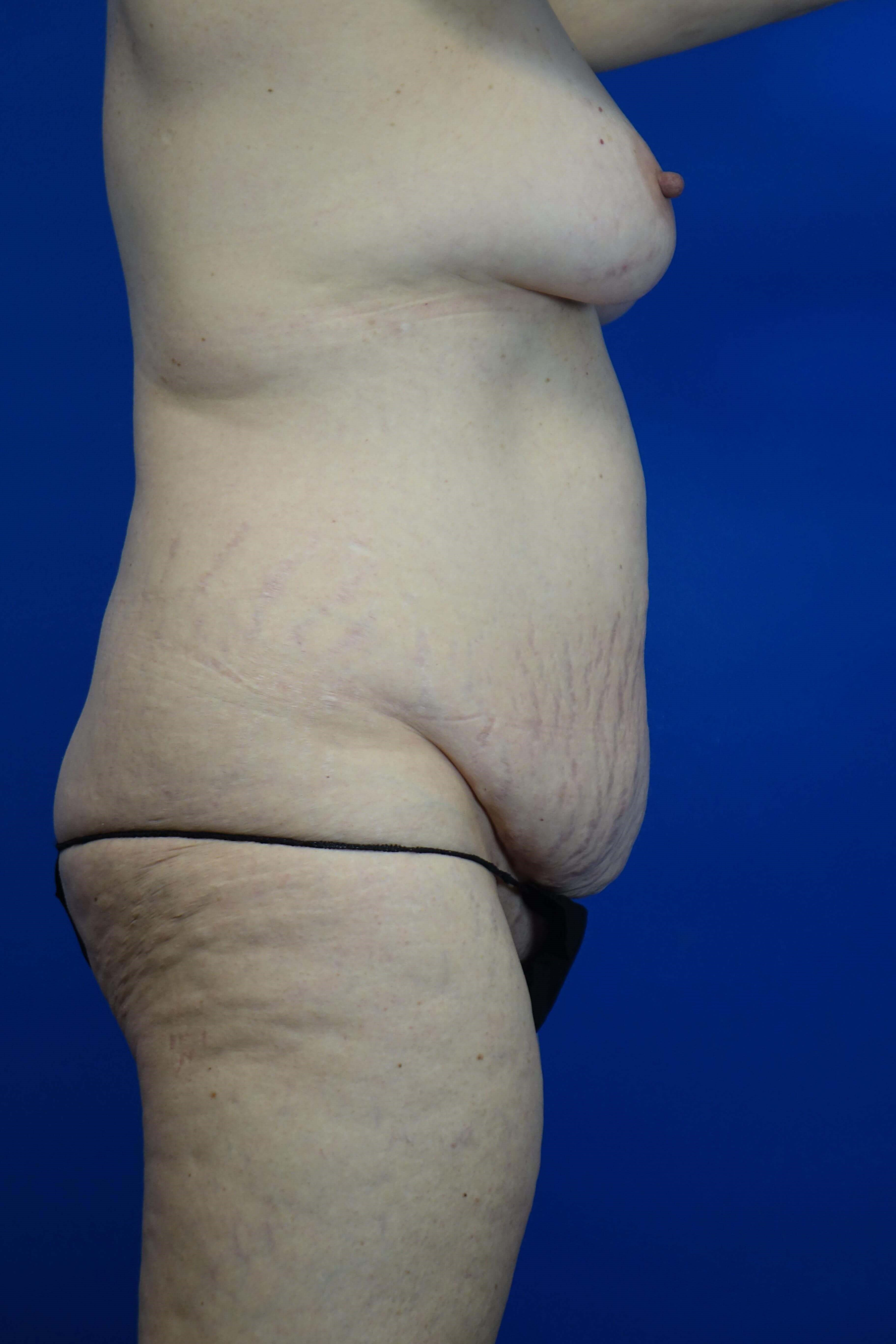 Tummy Tuck, Dr Paresi Before