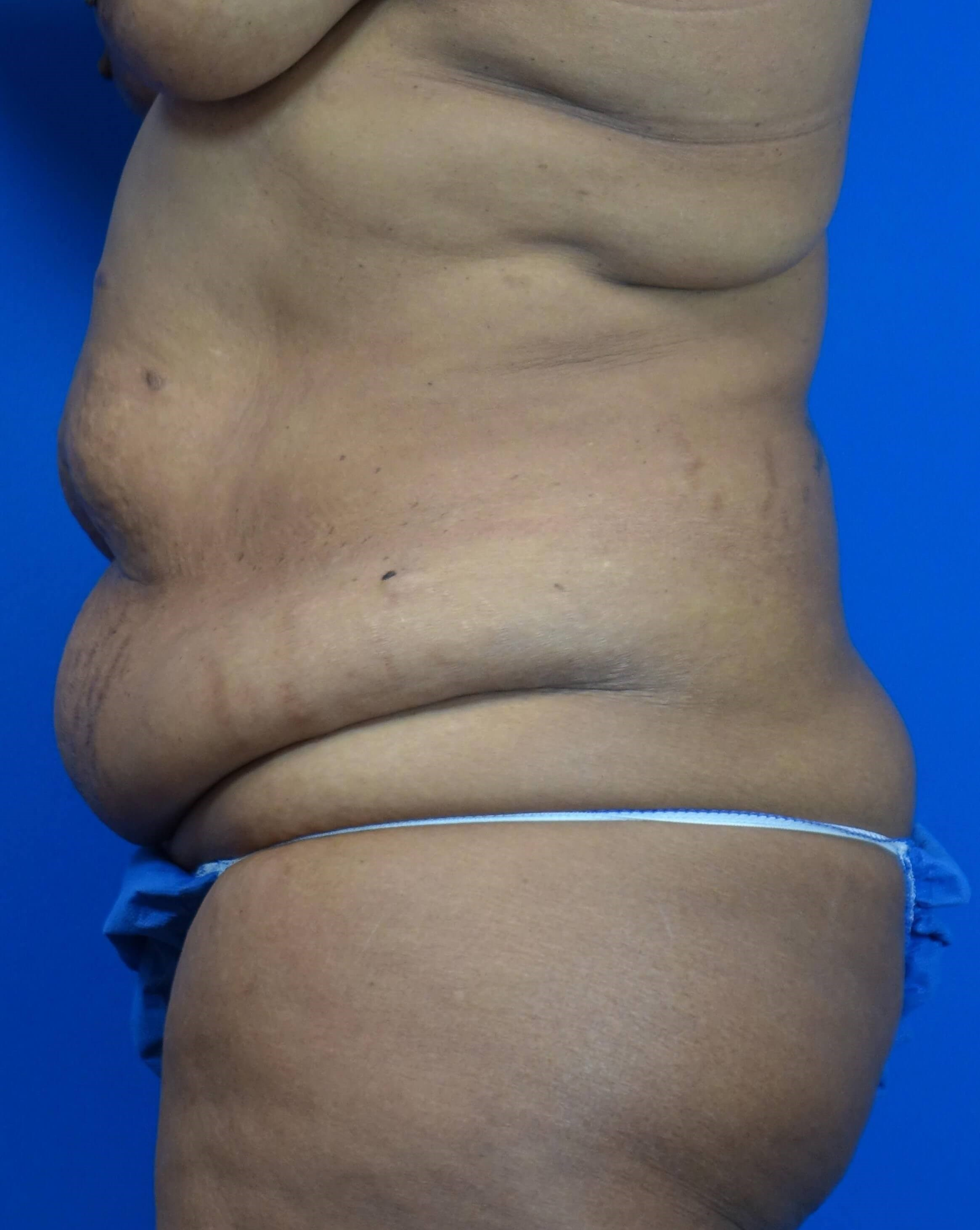 Tummy Tuck, Downers Grove, IL Before