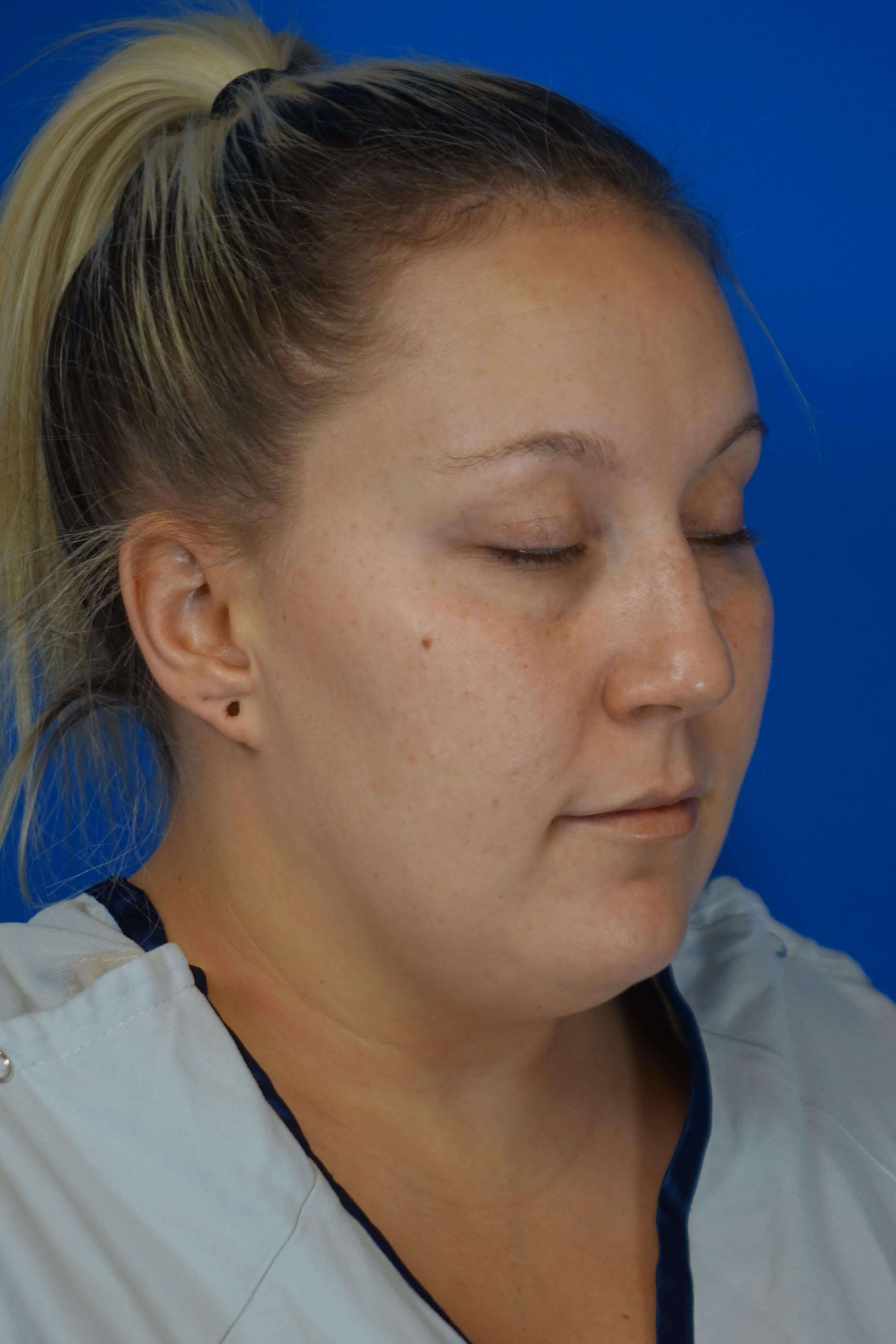 Laser Liposuction of Neck Before