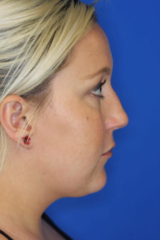 Laser Liposuction of Neck 3 months after