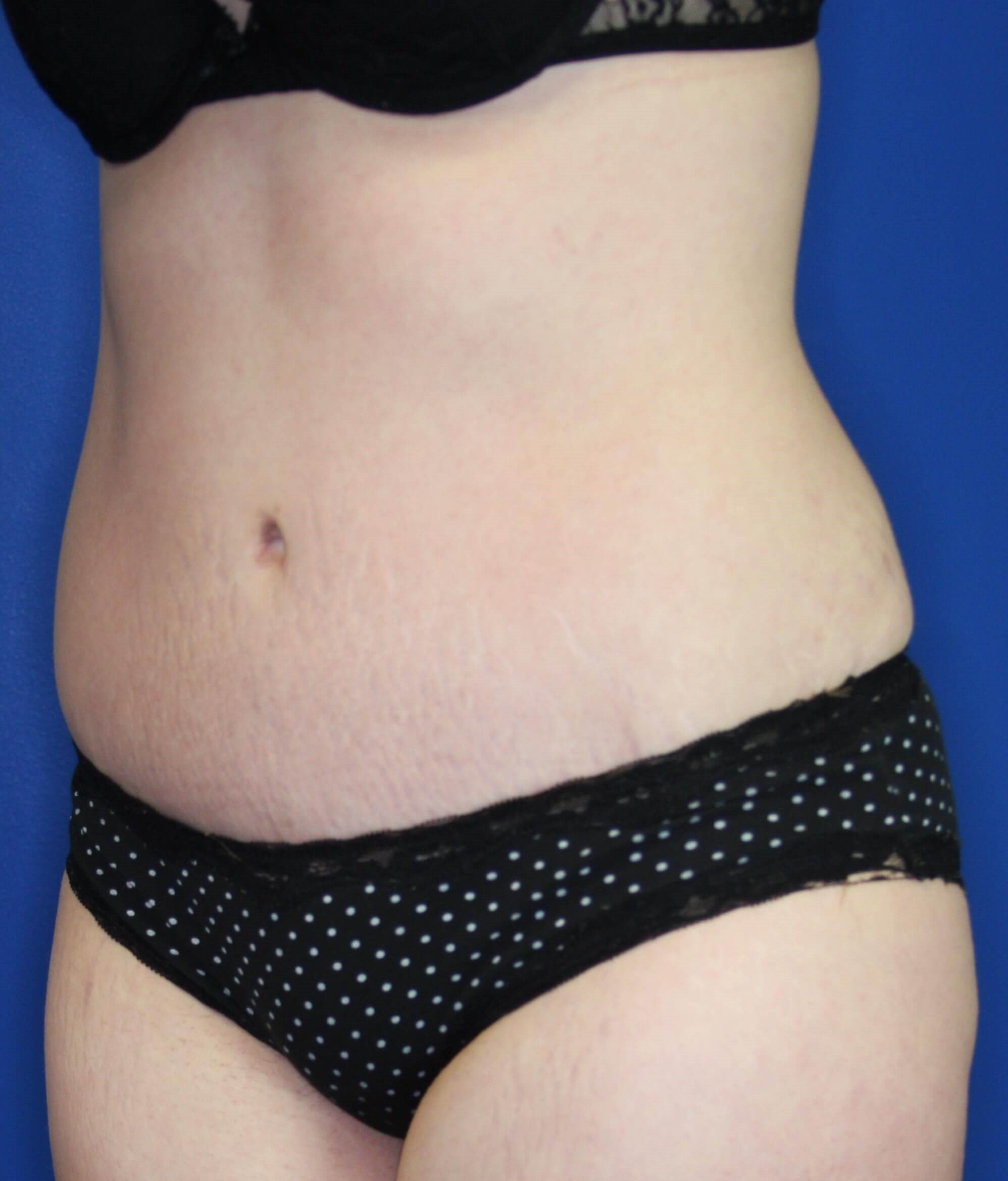 Tummy Tuck in Downers Grove,IL 5 months after