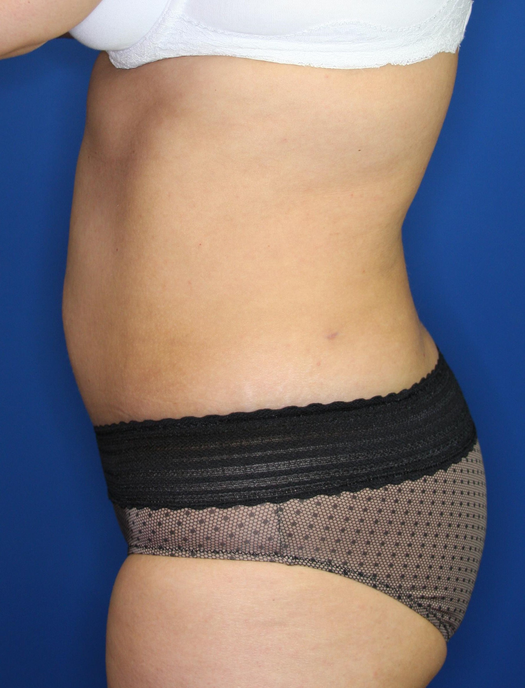 Mini-Tummy Tuck, Downers Grove 3 months after