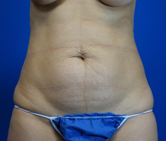 Mini-Tummy Tuck, Downers Grove Before