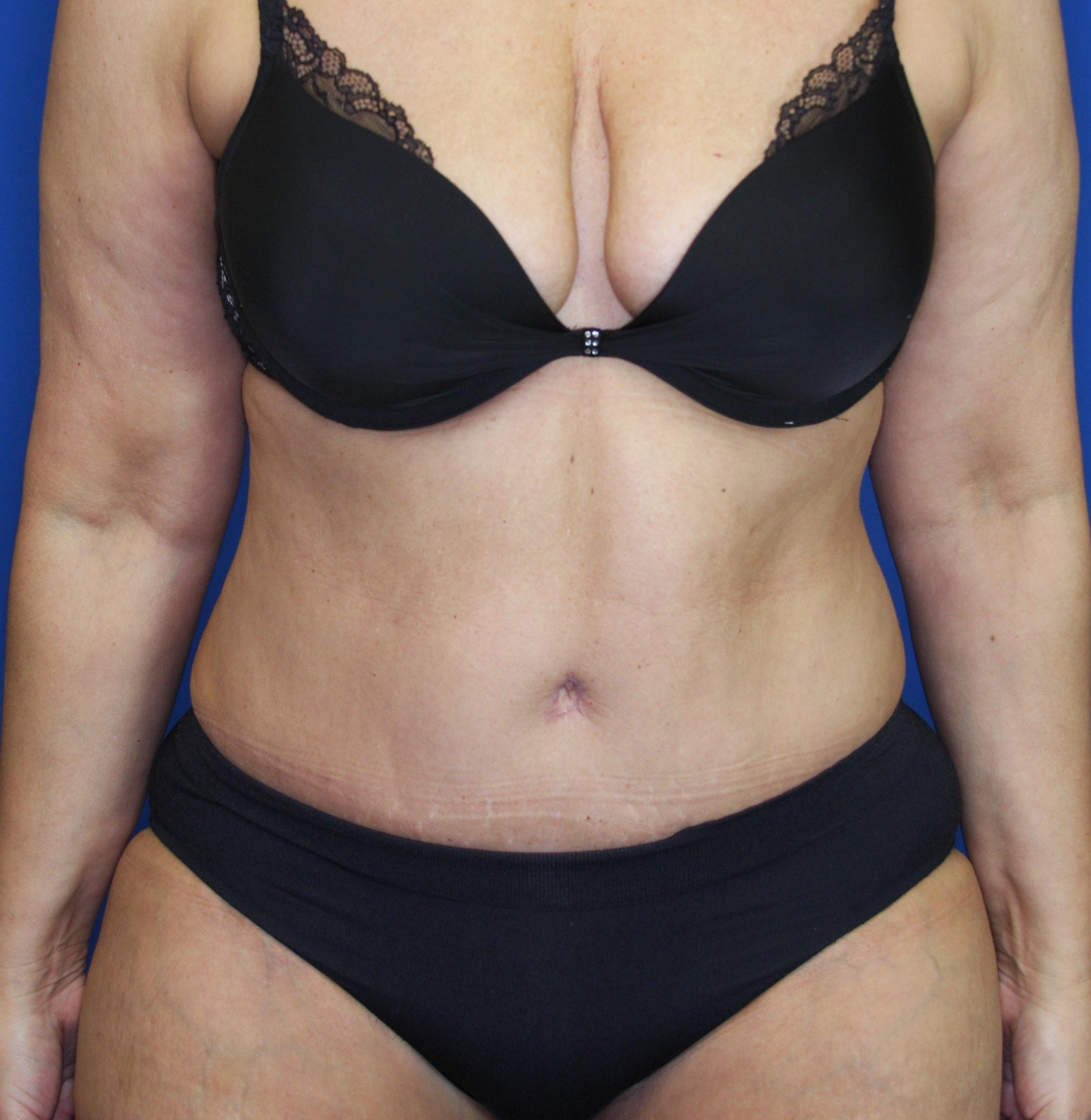 Tummy Tuck in Downers Grove,IL 6 weeks postop
