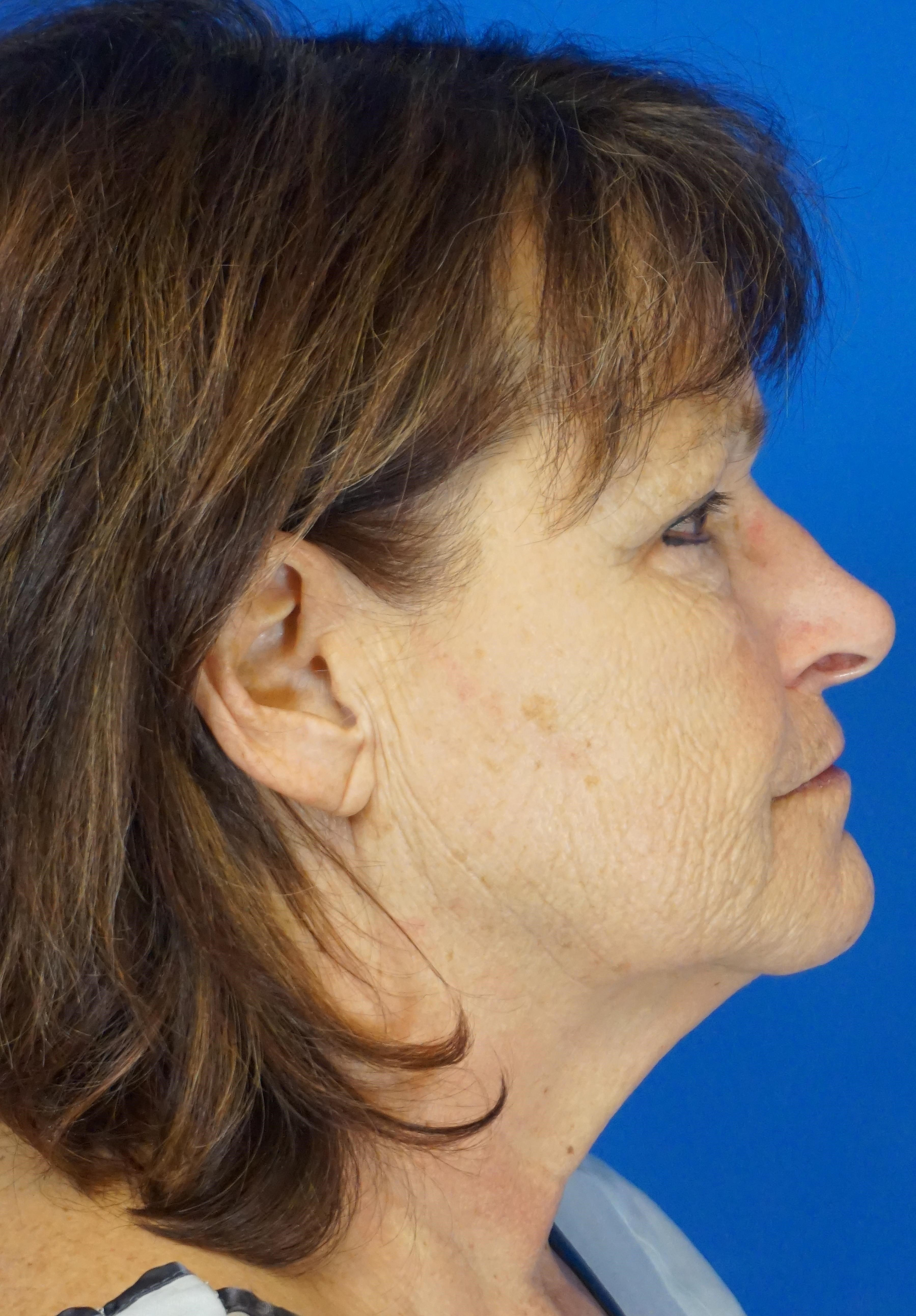 Short Scar Facelift in a 59 year-old Valparaiso, IN female in