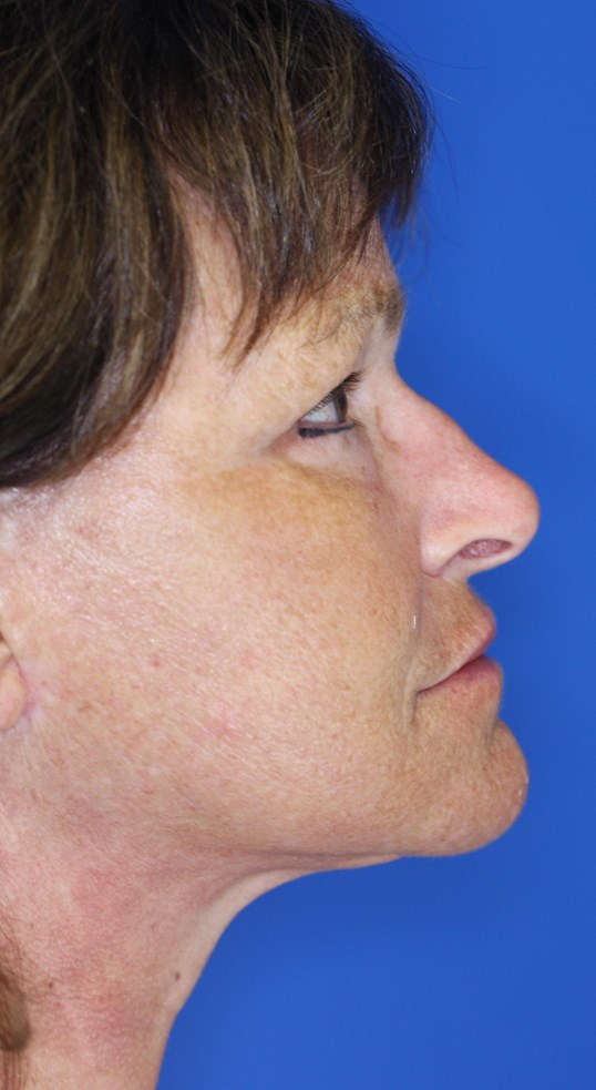 Facelift in Downers Grove, IL 6 months after