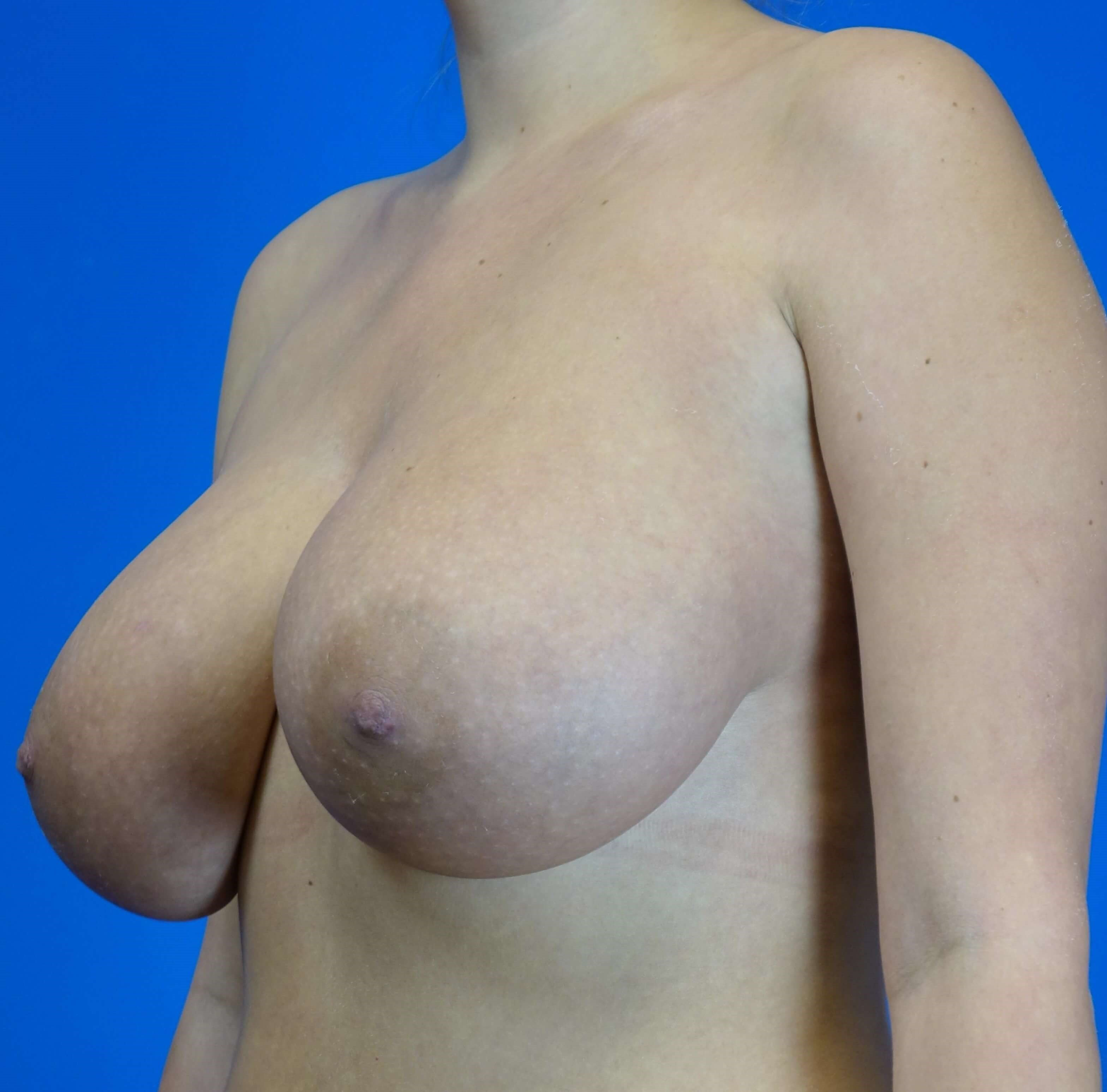 Short Scar Breast Reduction Before