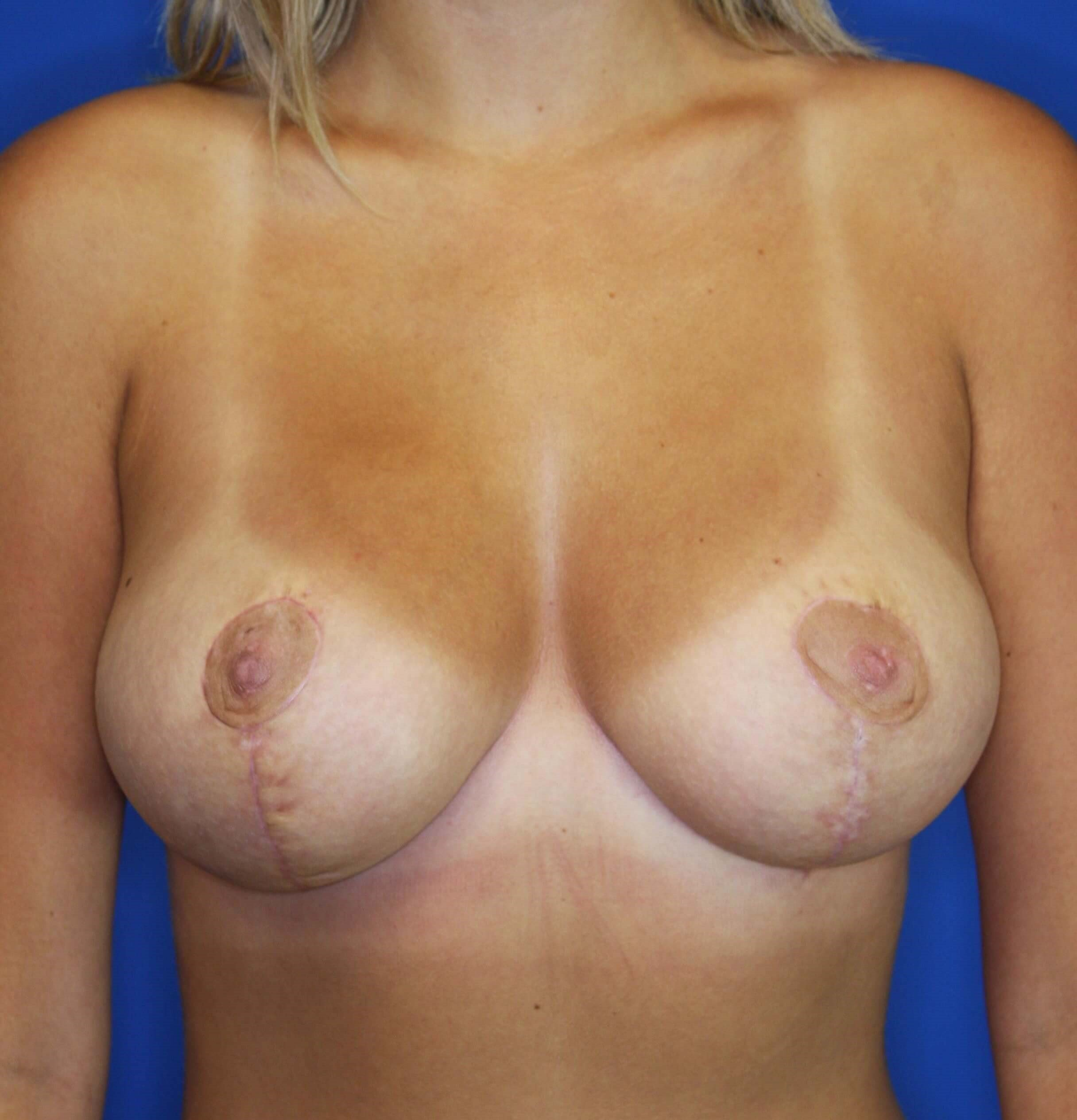 Short Scar Breast Reduction 2 months postop