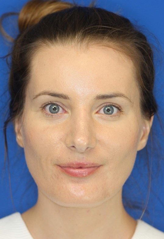 Rhinoplasty, Downers Grove, IL 3 months after