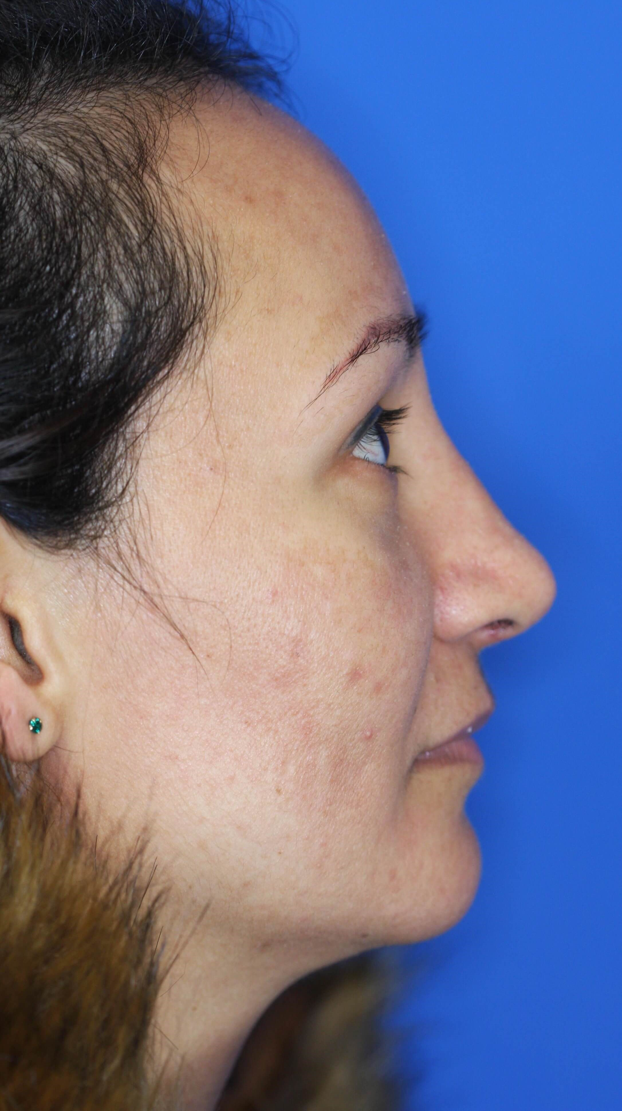 Rhinoplasty, Downers Grove, IL 3 months postop