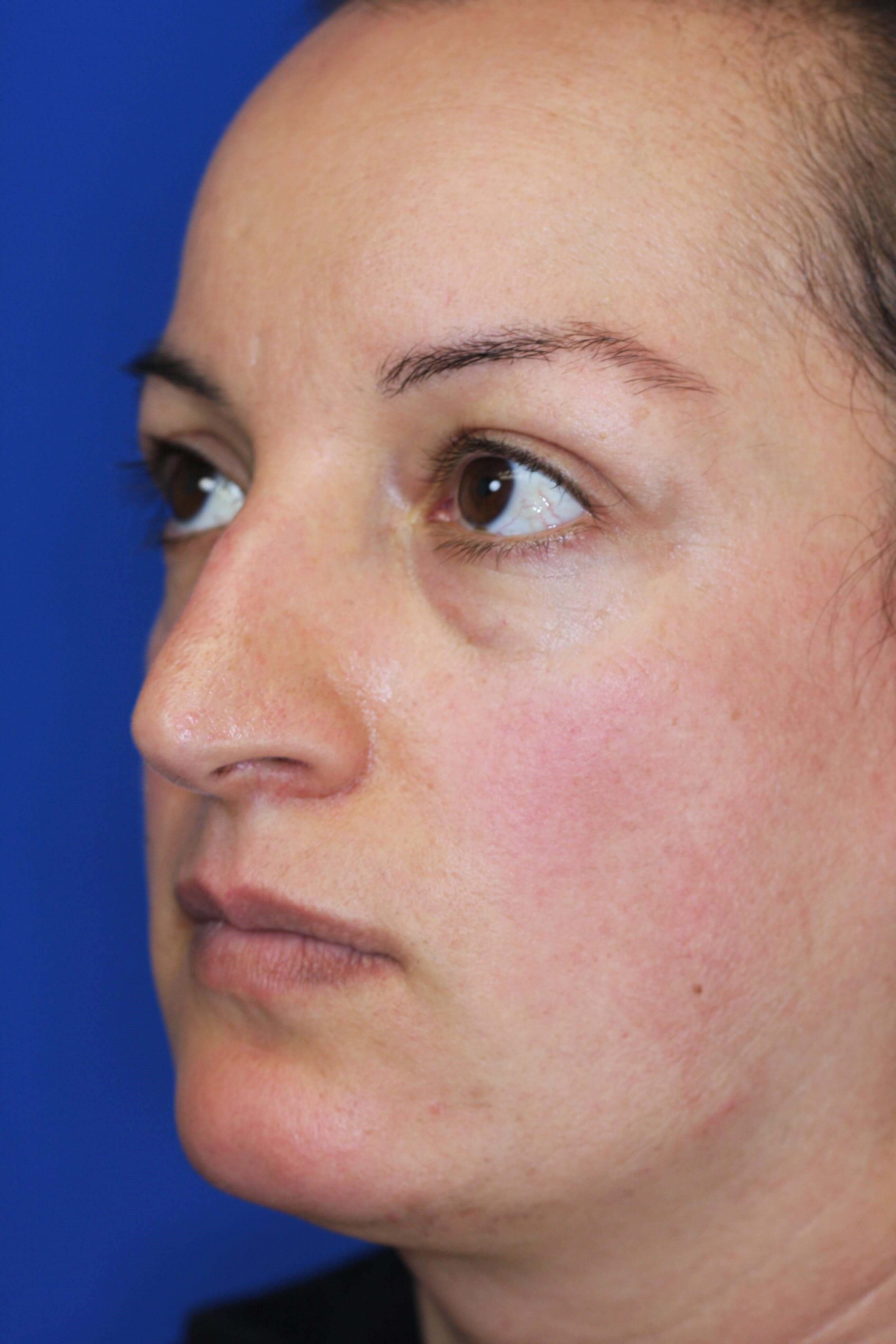 Rhinoplasty, Downers Grove, IL Before