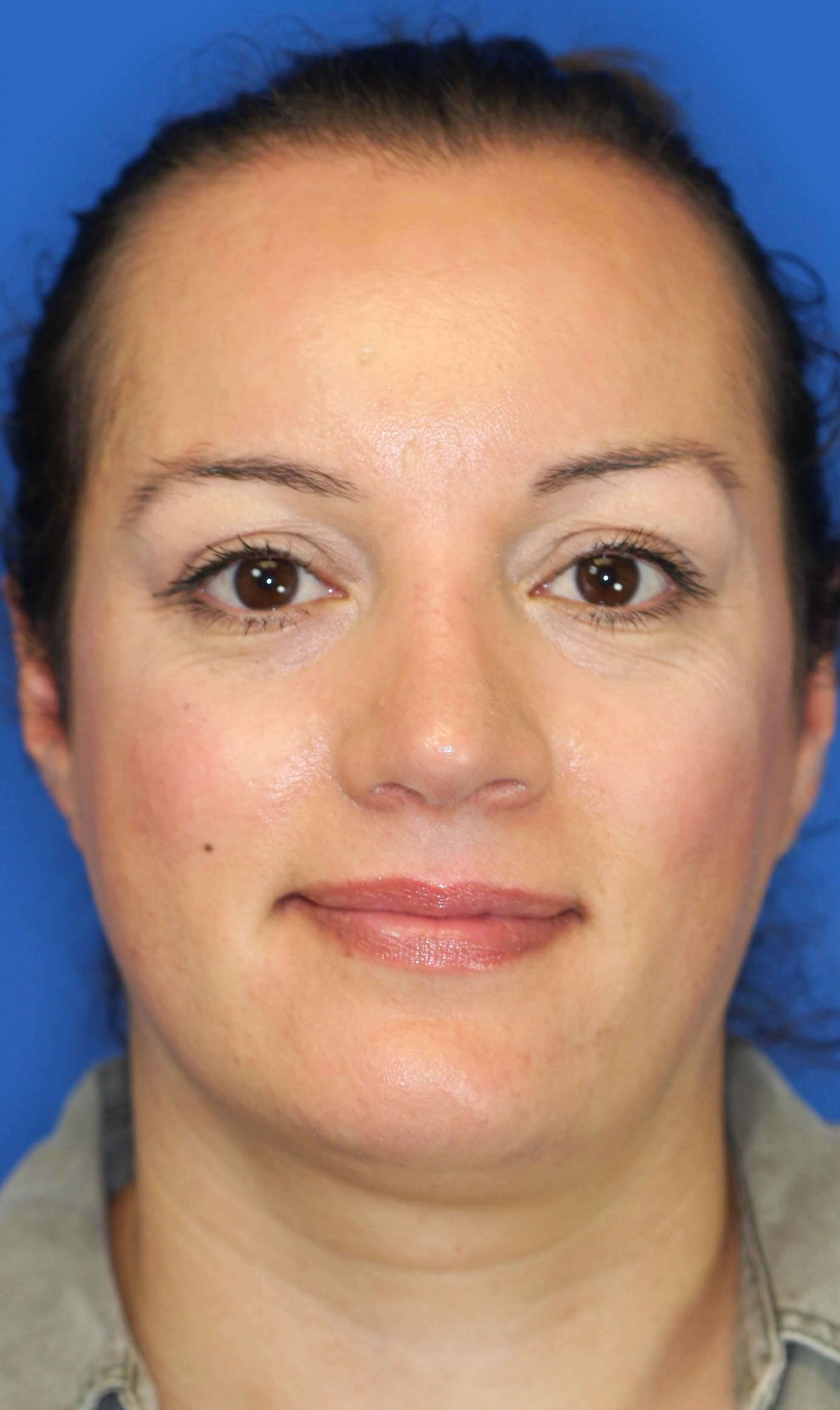 Rhinoplasty, Downers Grove, IL After