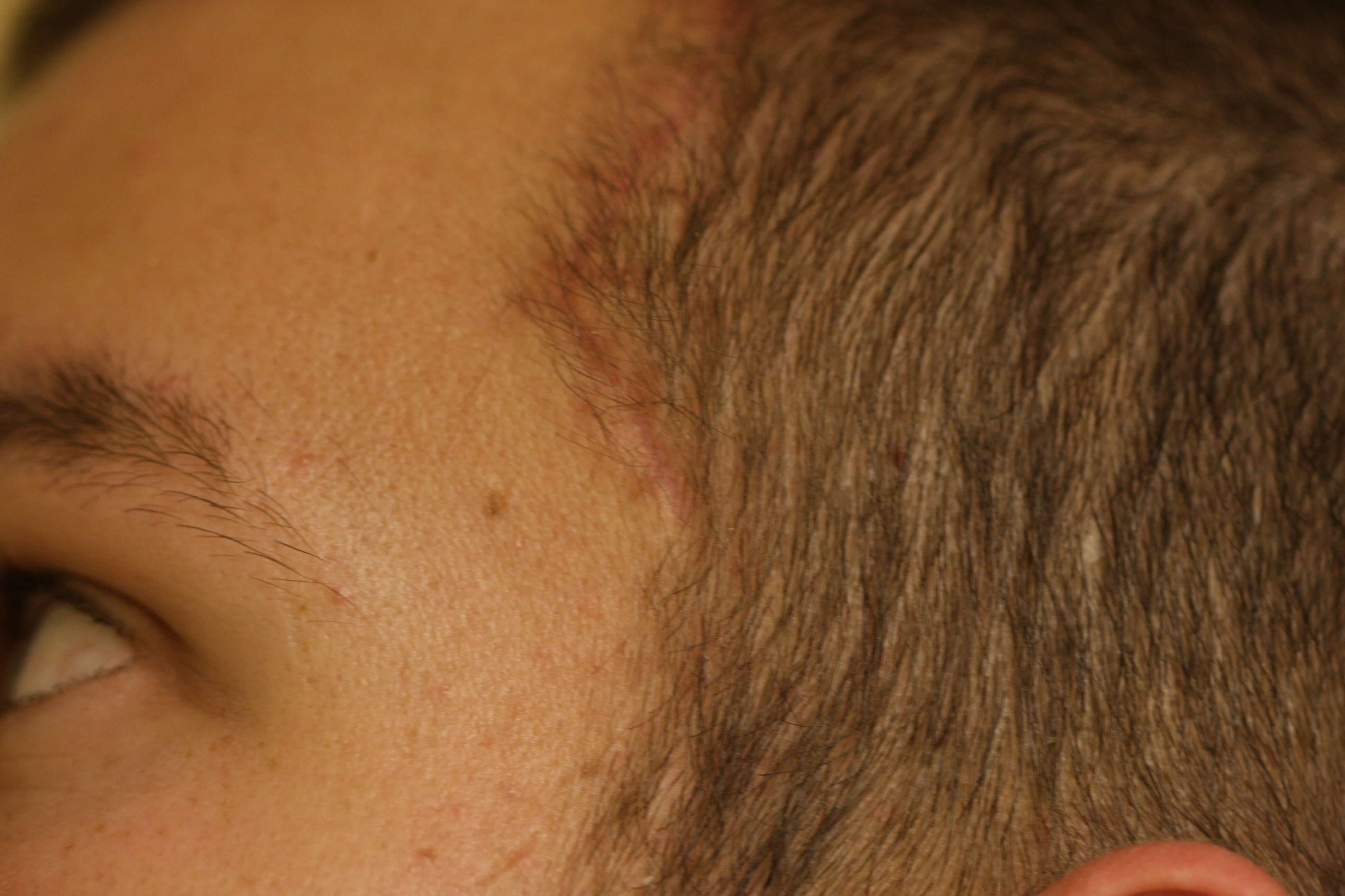 Frontal Hairline Incision Postoperative Side View