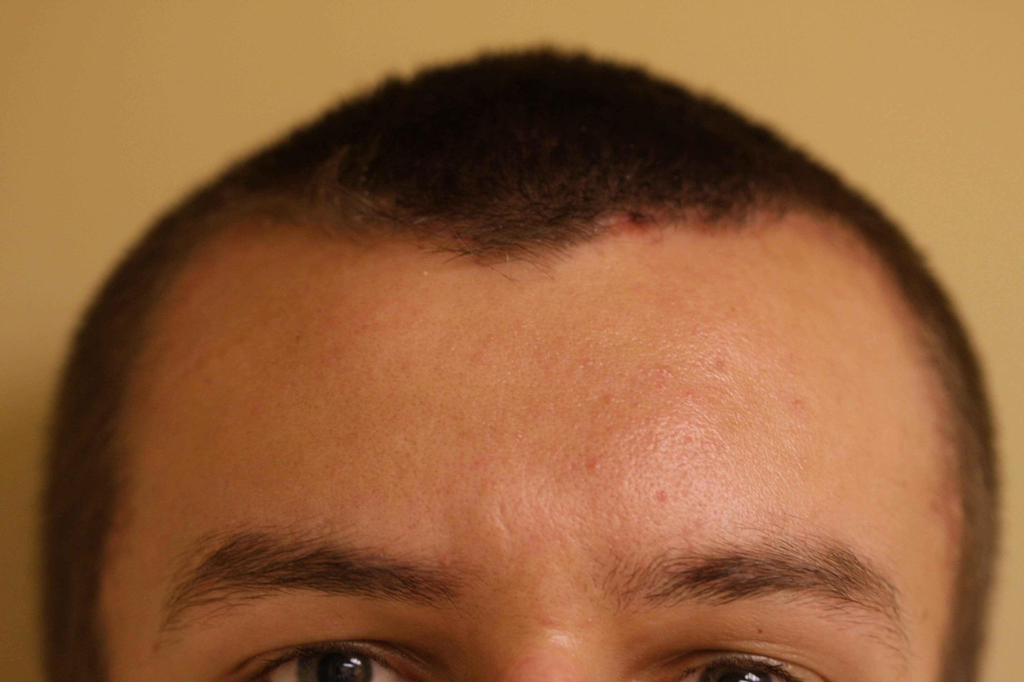 Frontal Hairline Incision Postoperative Front View
