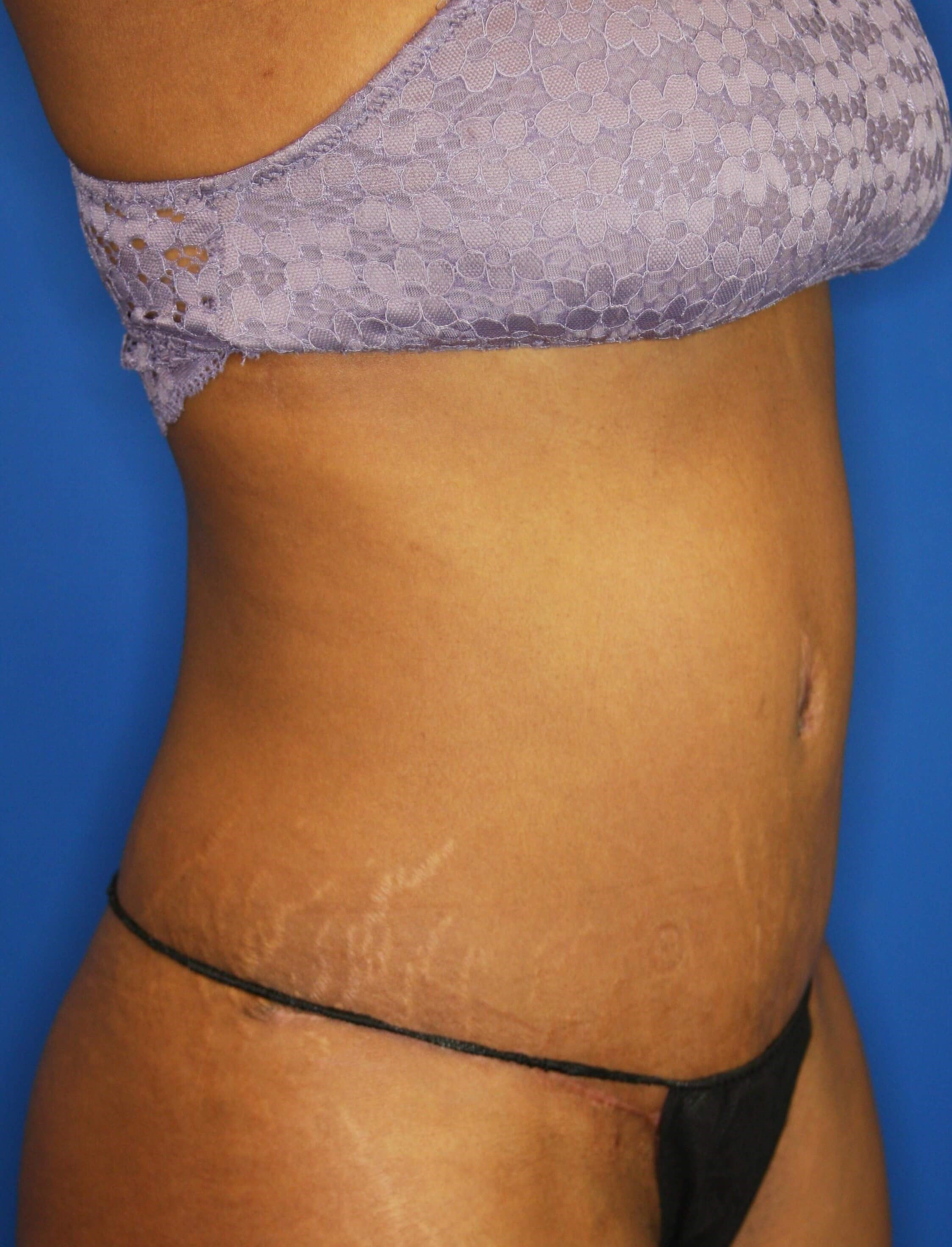 Tummy Tuck in Downers Grove,IL 3 months after