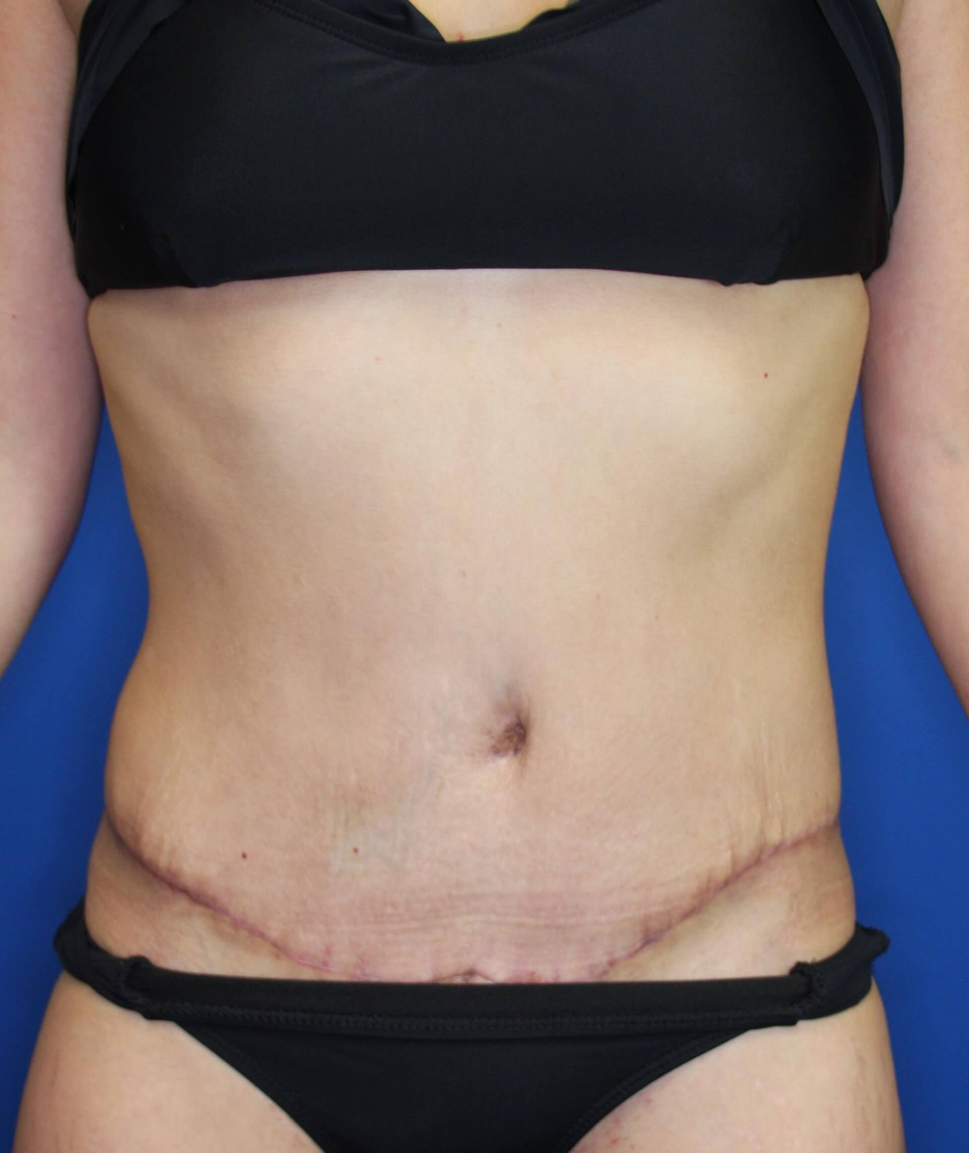 Tummy Tuck, Downers Grove, IL 2 months postop