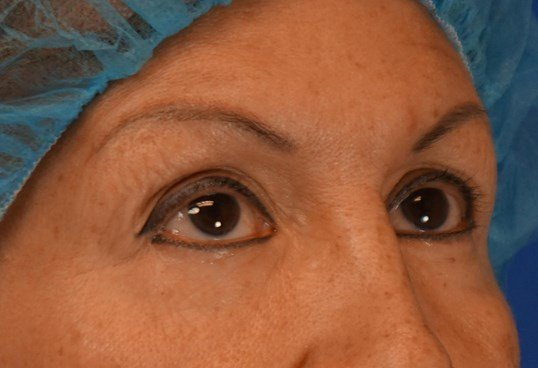 Eyelids in Downers Grove, IL Before