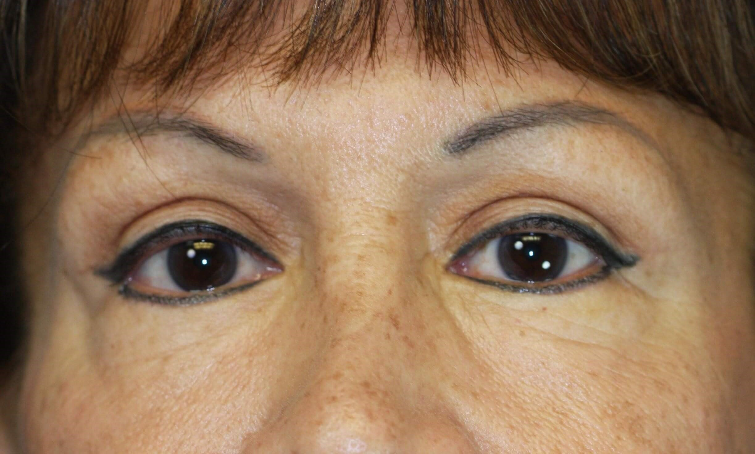 Eyelids in Downers Grove, IL 3 months after