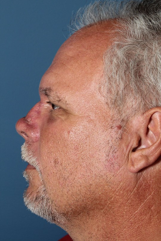 Nasal Reconstruction 6 months after