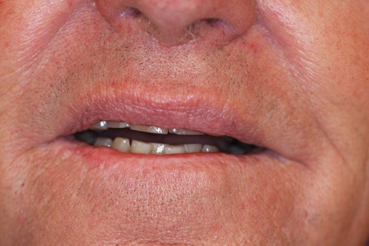 Lip Reconstruction 3 months postoperative