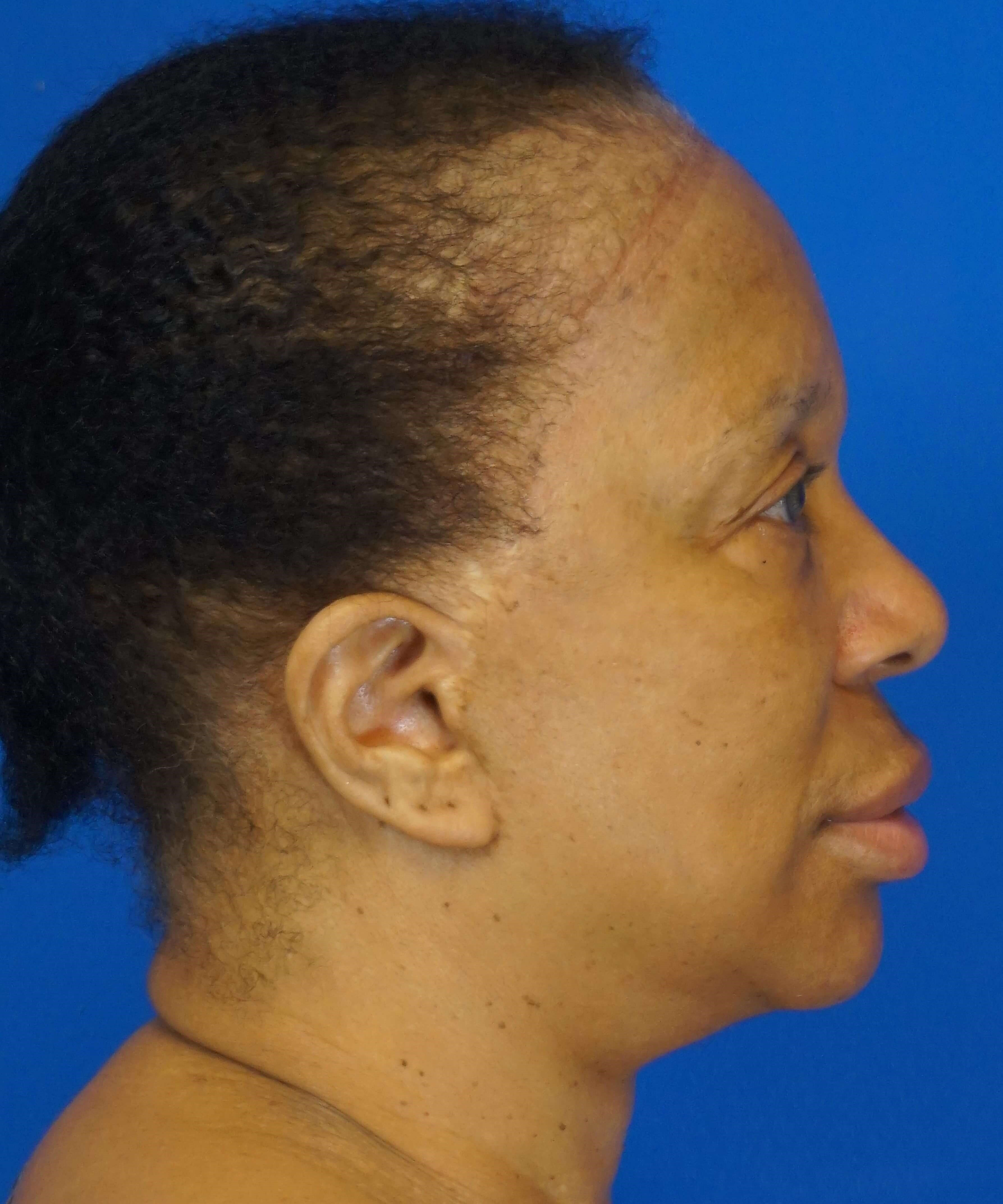 Facelift in Downers Grove, IL Before