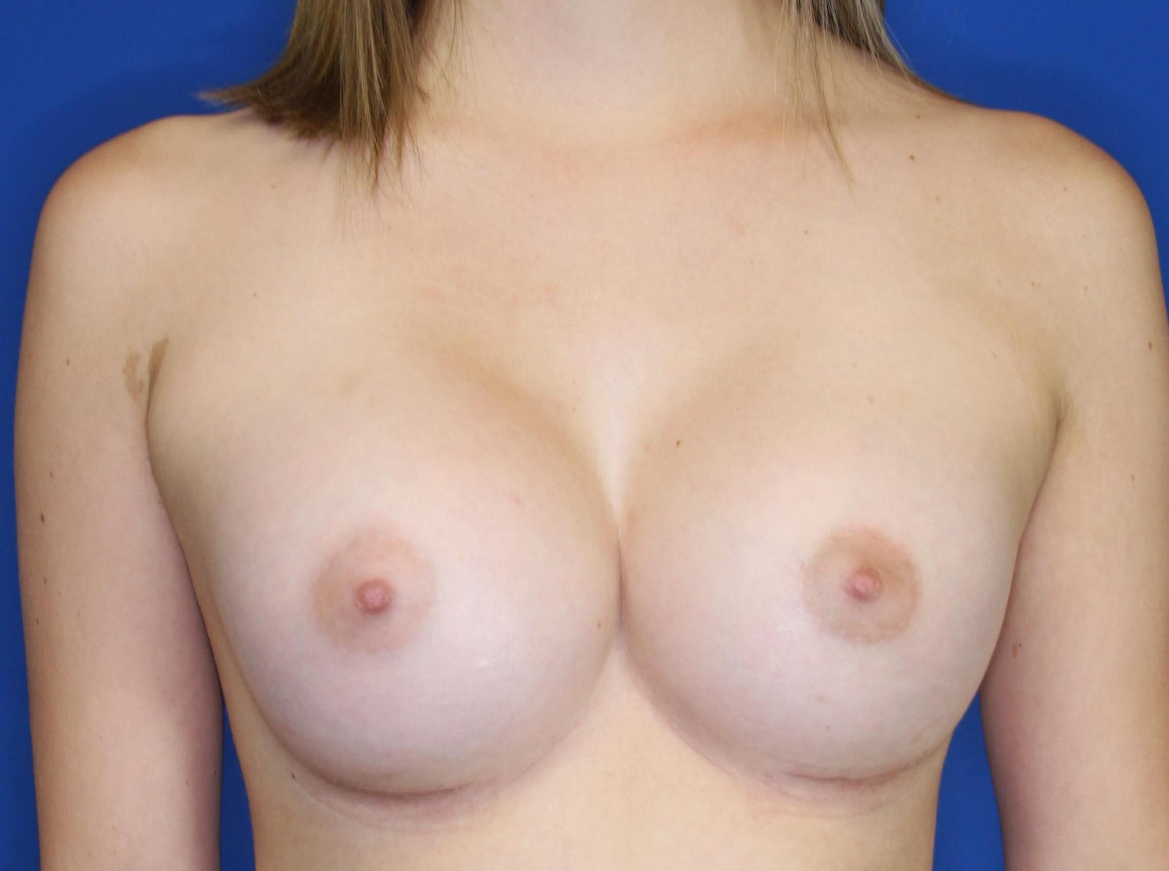 Breast Augmentation 6 weeks postop