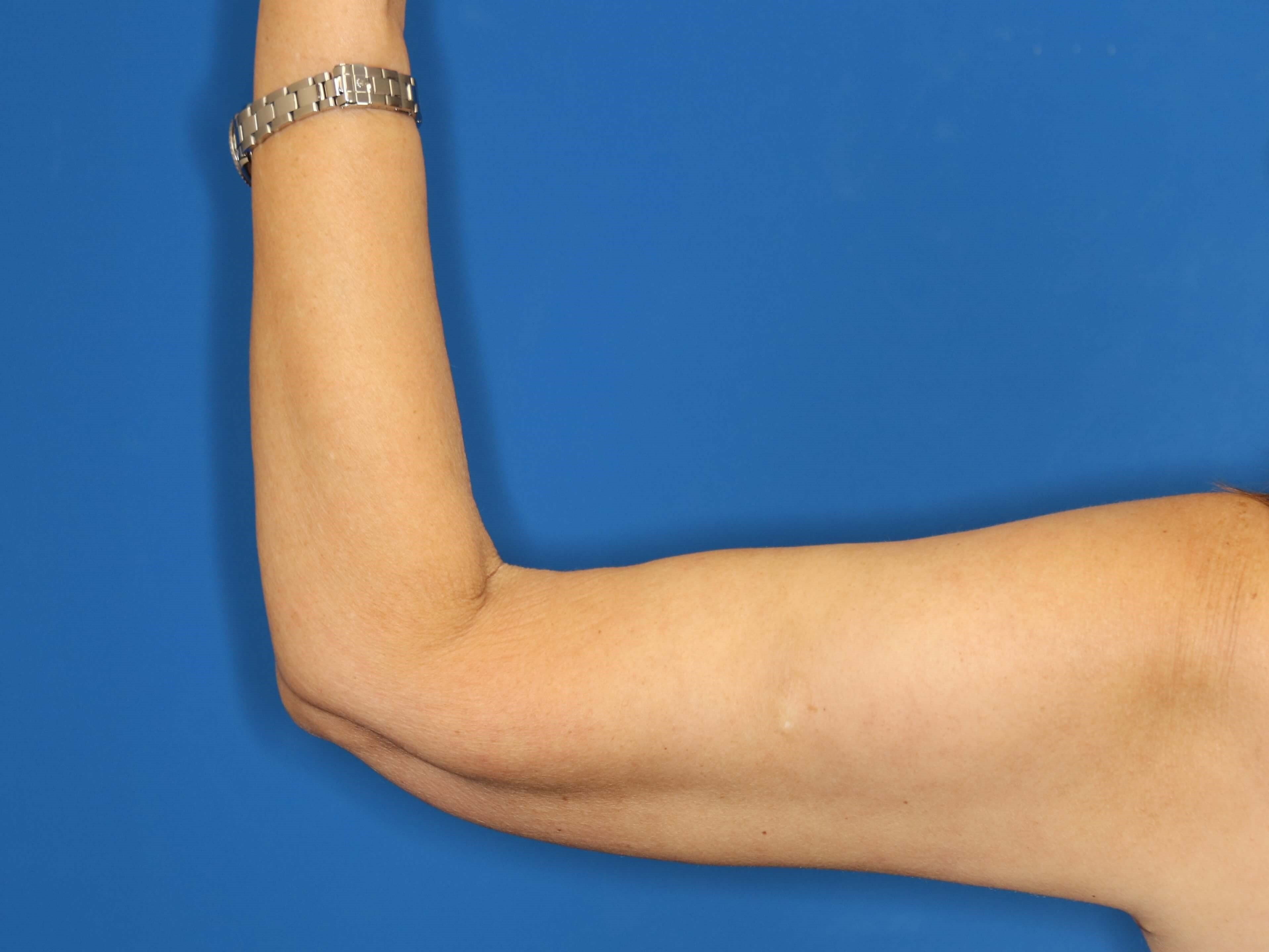 Arm Lift in Downers Grove, IL 3 months post op