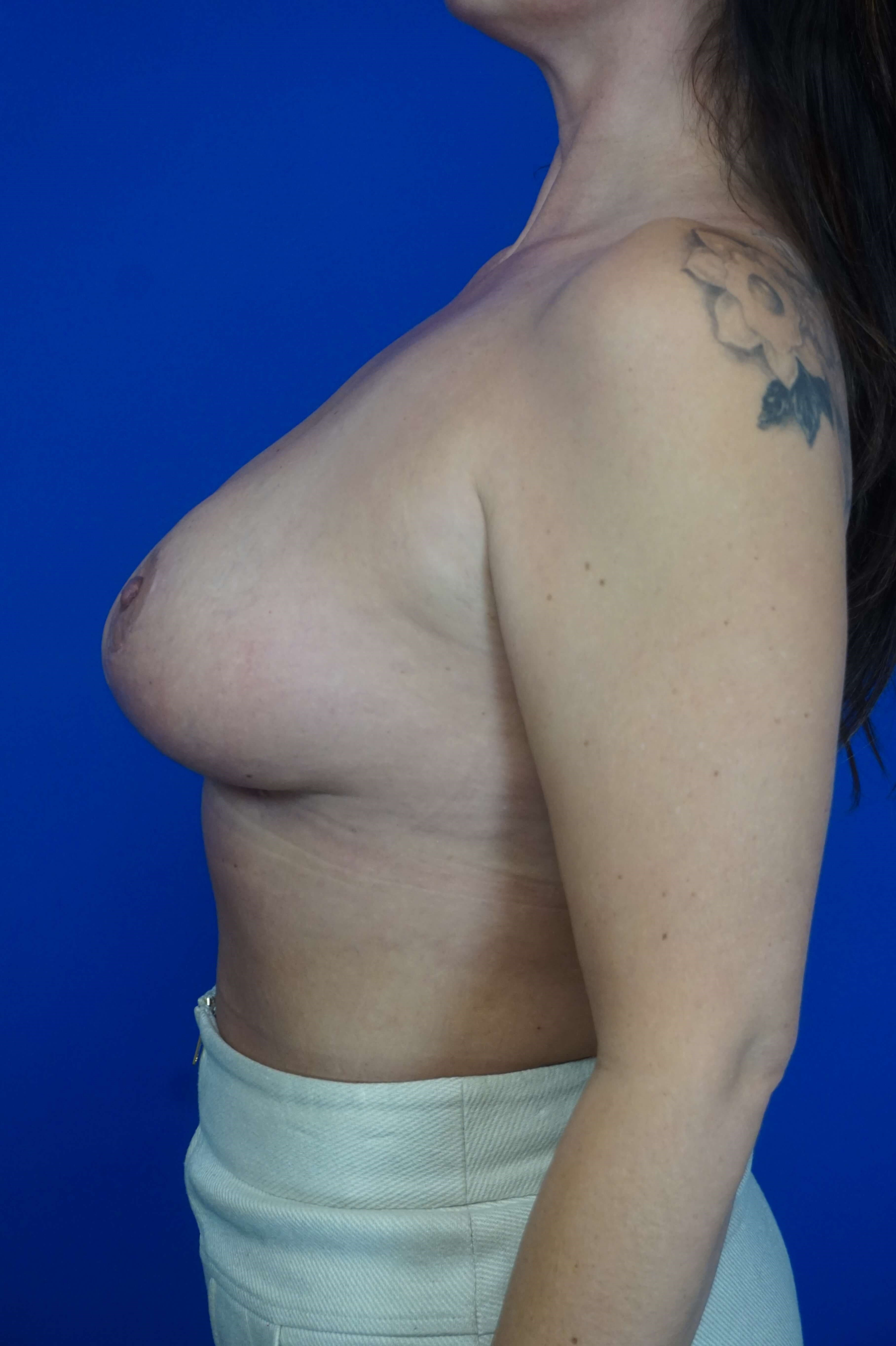 Short Scar Breast Reduction 8 months post op