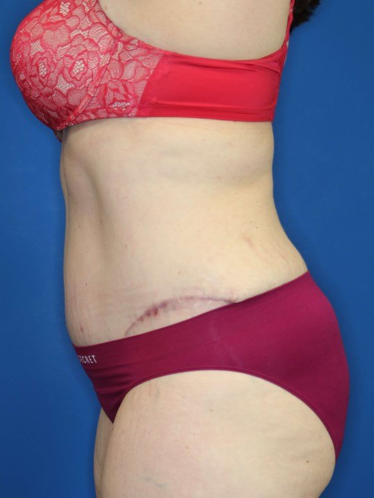 Tummy Tuck in Downers Grove,IL 3 months post op