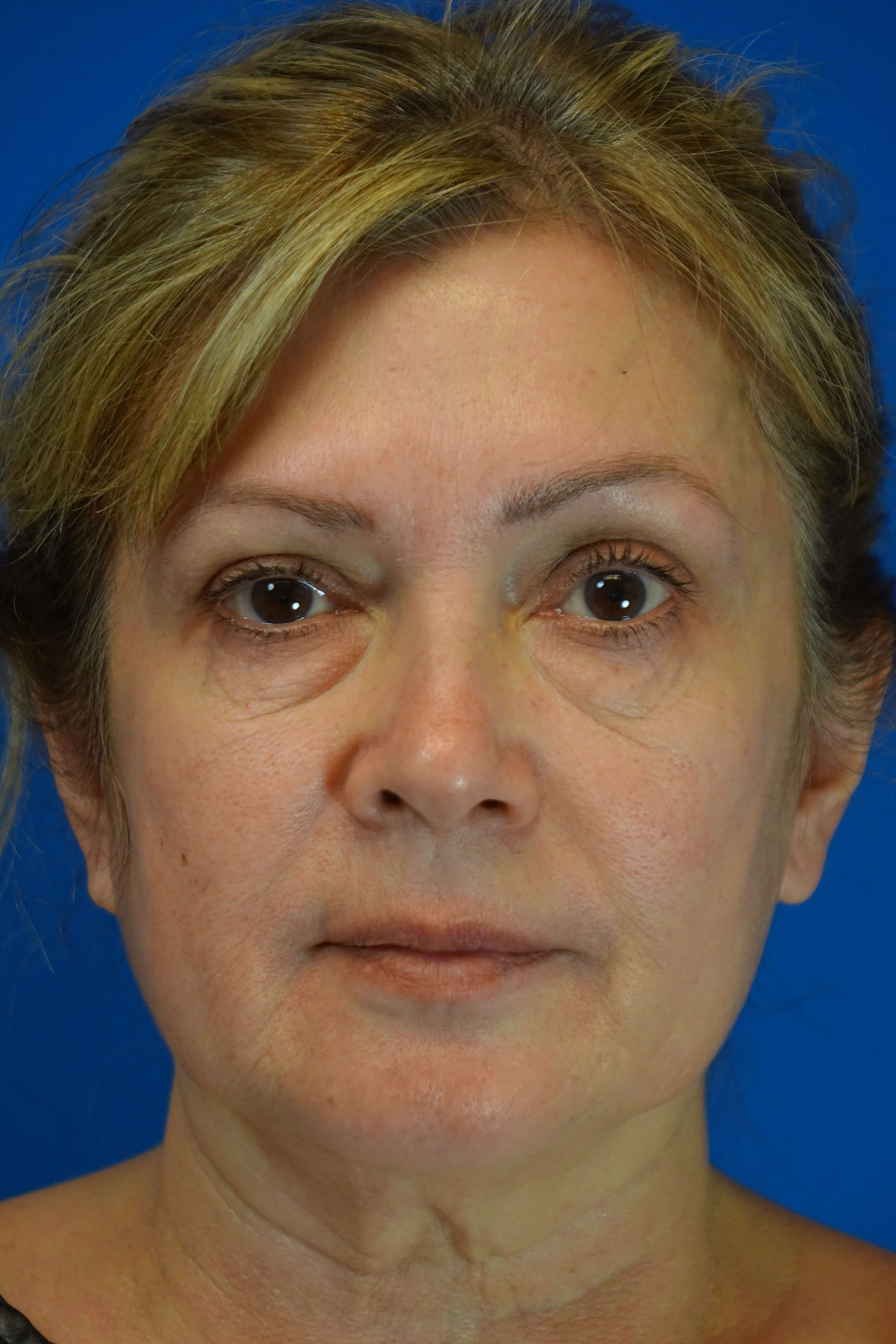Blepharoplasty, Downers Grove Before