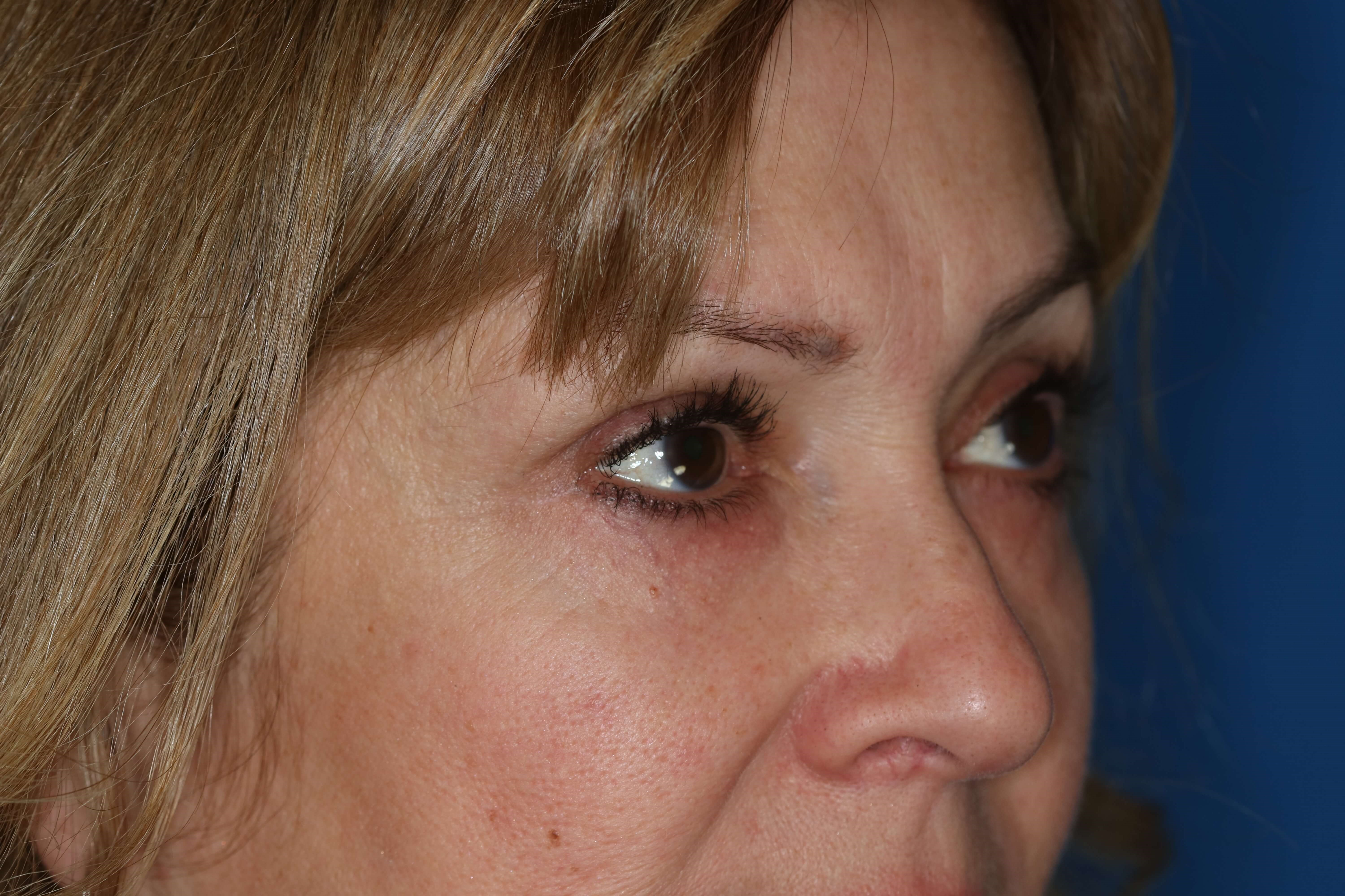 Blepharoplasty, Downers Grove 7 months post op