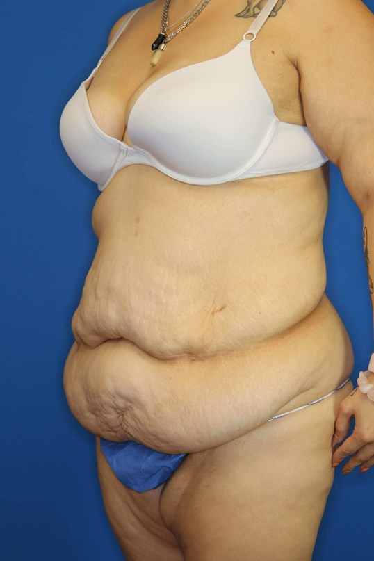 Tummy Tuck in Downers Grove,IL Before