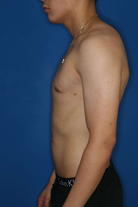 Male Breast Reduction 6 weeks postop