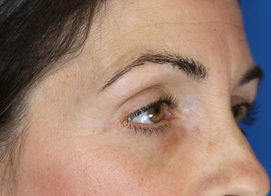 Lower Eyelid Lift 3 months after