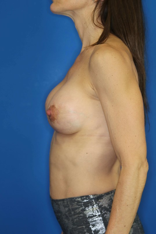 BREAST AUG, DOWNERS GROVE, IL 3 months post op