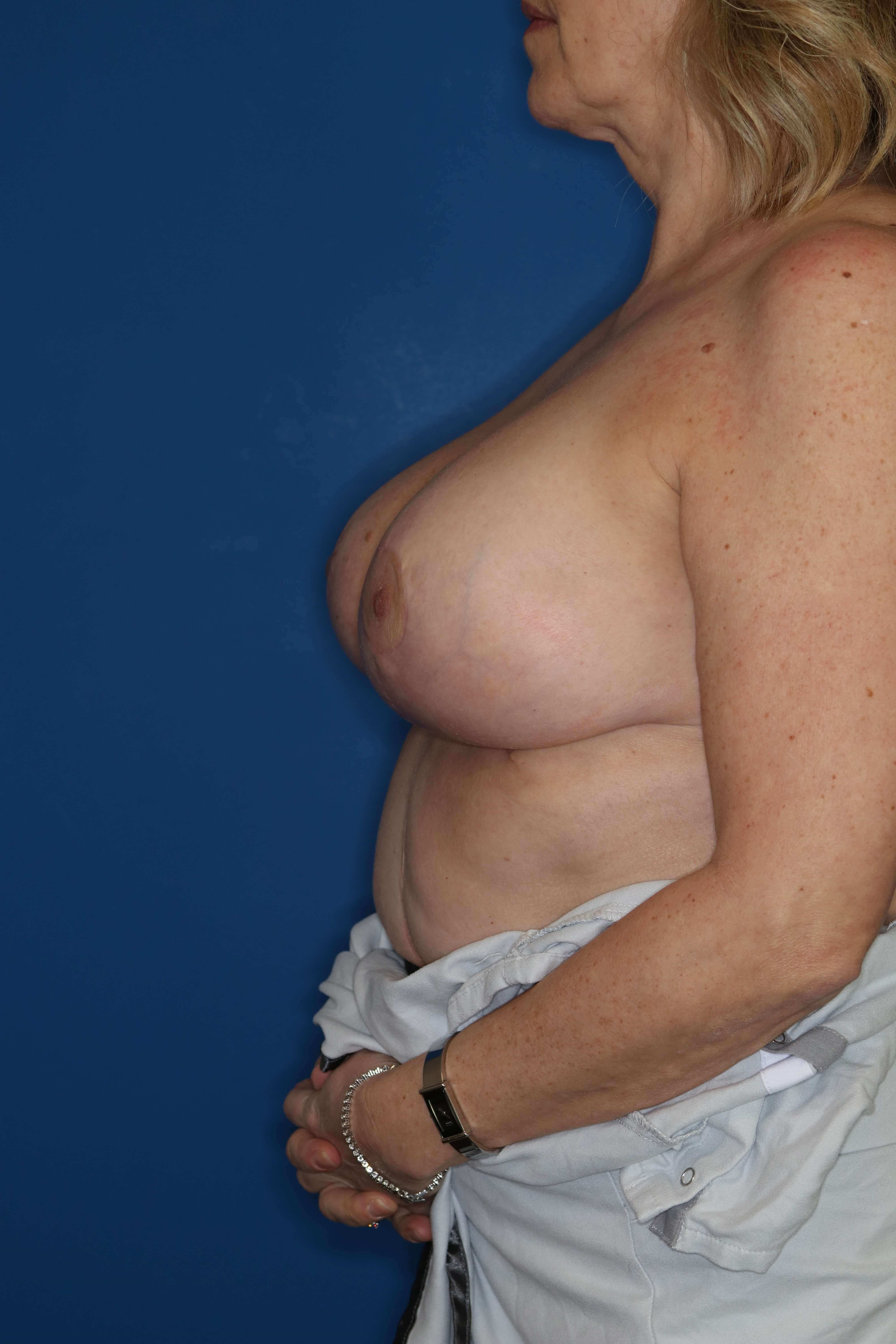 Short Scar Breast Reduction 3 months post op