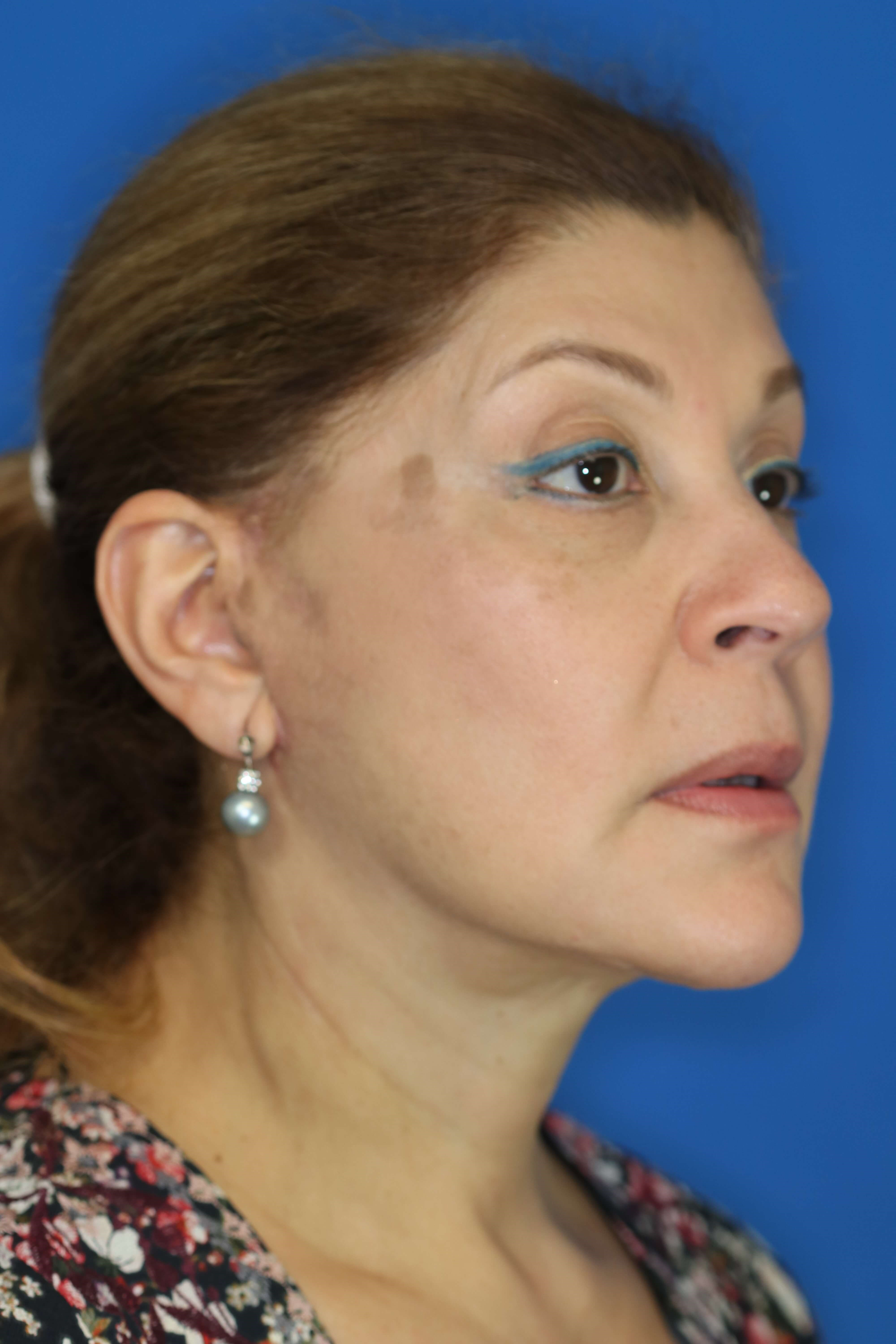 Facelift in Downers Grove, IL 3 months post op