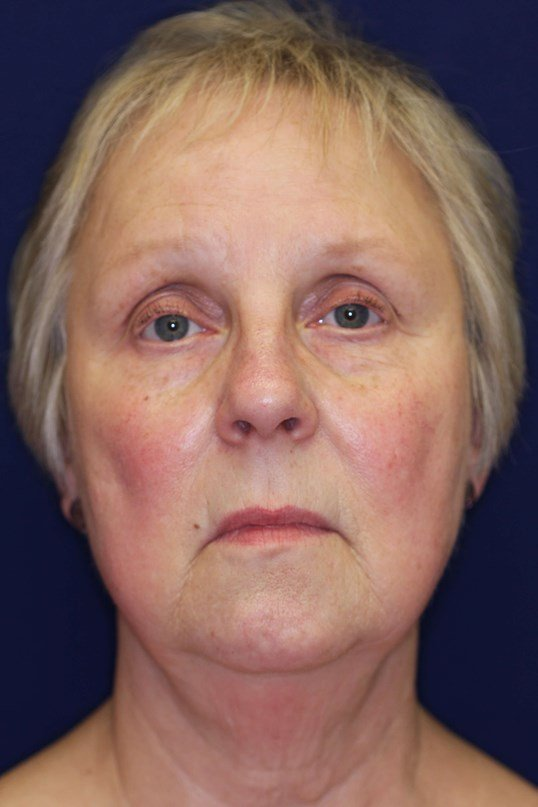 Short Scar Facelift Before