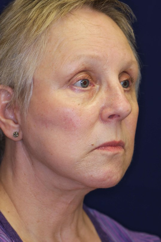Short Scar Facelift 3 months