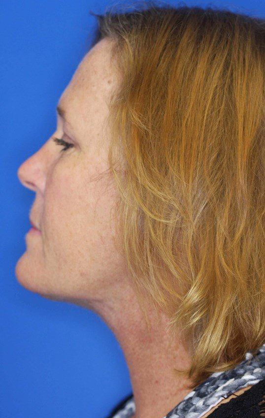 Necklift and Upper Eyelid Lift 3 months after