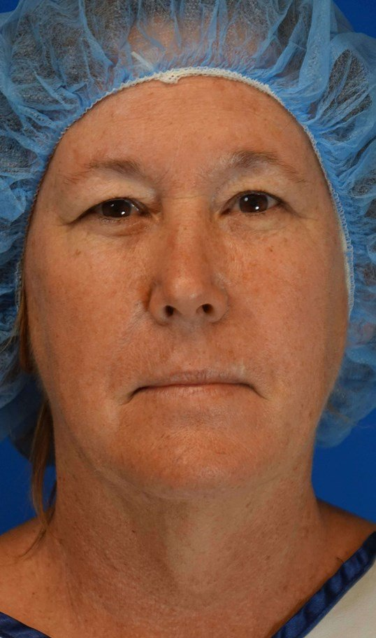 Necklift and Upper Eyelid Lift Before